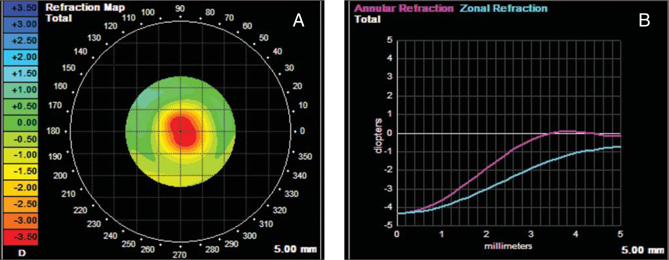 (A) A refraction map of a patient 6 months postoperatively as recorded and analyzed by an iTrace wavefront aberrometer (Tracey Technologies, Houston, TX). (B) Annular and zonal refraction plots derived from the refraction map in Figure 2A as output by the iTrace wavefront aberrometer.