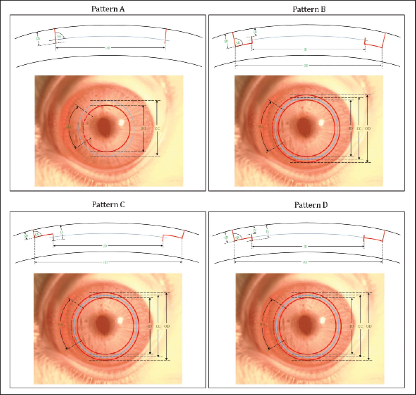 Illustrations of the tested VisuMax Circle patterns (Carl Zeiss Meditec, Jena, Germany) and the incision parameters selected for respective pattern. Pattern A creates a side cut within the cap cut (CC; in blue). Pattern B creates a lamellar ring posterior to the cap cut. Pattern C creates a lamellar ring anterior to the cap cut. Pattern D creates a lamellar ring adjacent to the cap cut. The parametric settings of the patterns tested in the current study can be found in Table 1. OD = outer diameter; JD = junction diameter; SD = side cut depth; SA = side cut angle; HA = hinge angle; JU = junction upper depth; JL = junction lower depth