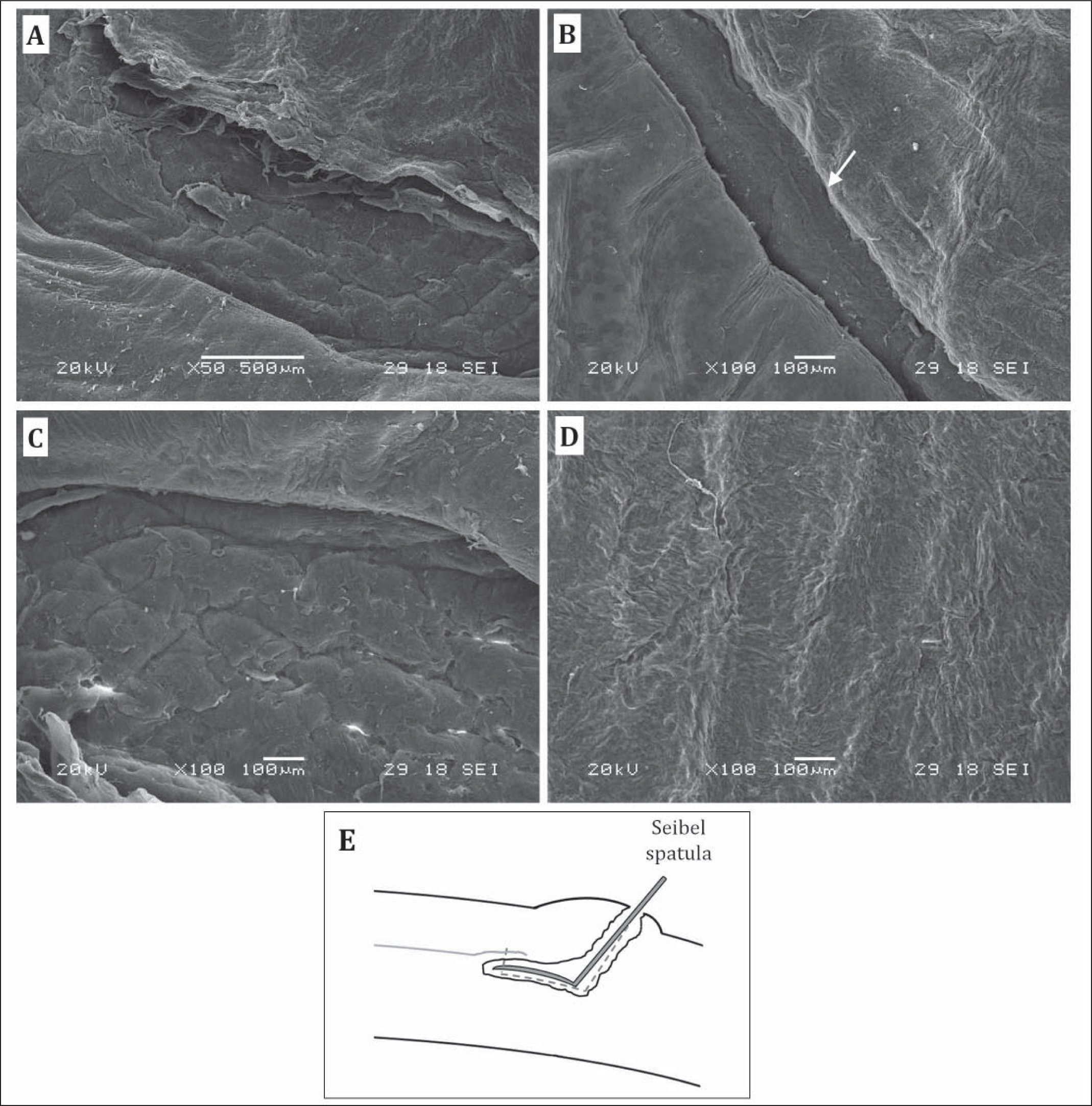 Scanning electron microscopy (SEM) images of the corneal stromal bed treated with pattern B. (A) SEM showing the lamellar damage under the edge of the cap cut created by the Seibel spatula. (B) The area in the opposite quadrant of that shown in (A). Arrow indicates an elevation of the cap cut from the lamellar ring. (C) The side cut and surface of lamellar ring. (D) The central corneal flap bed. (E) Illustration depicting a Seibel spatula, inserted into the lamellar ring incision, penetrates and damages the lamellae under the edge of the cap cut as shown in SEM image (A), due to the difficulty in accessing the correct plane (the cap cut), as the lamellar ring is placed posterior to it.