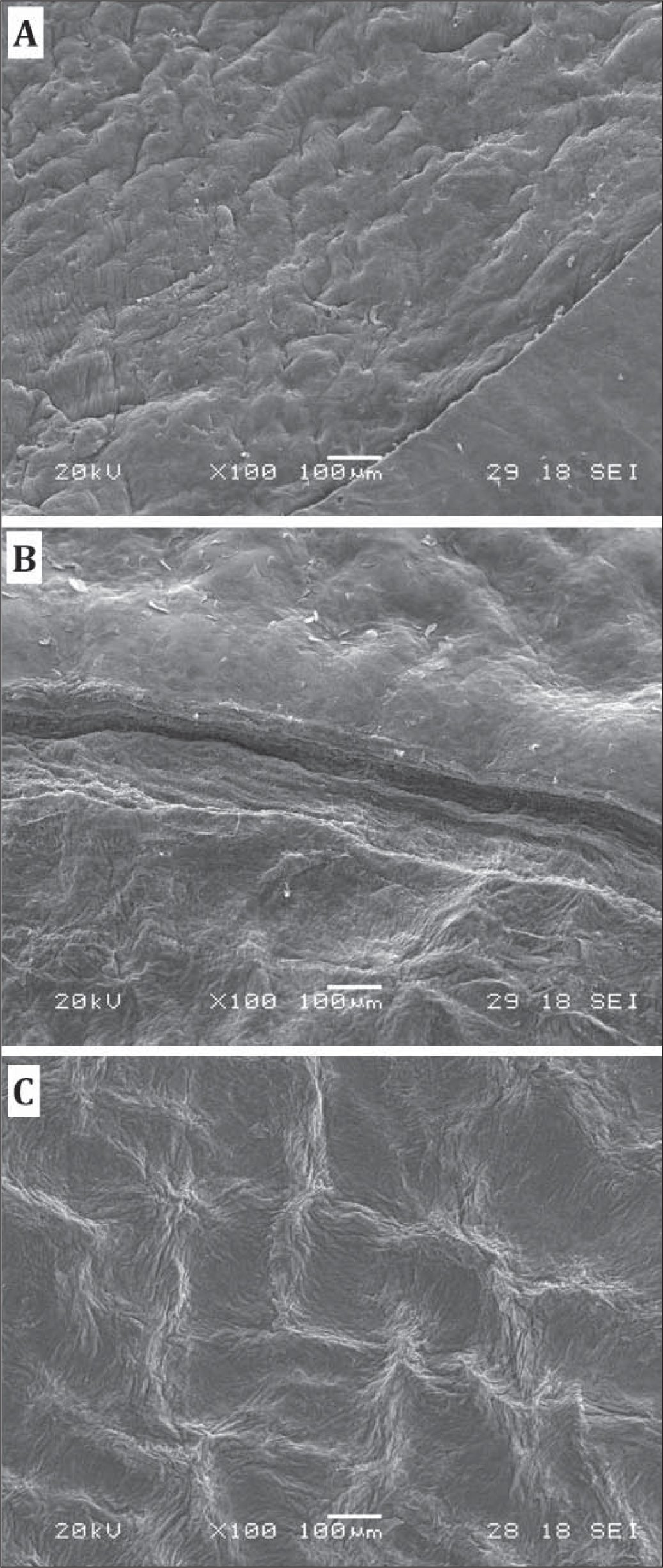 Scanning electron microscopy (SEM) images of the corneal stromal bed treated with pattern D. (A) The transition between lamellar ring and cap cut is barely visible. (B) The side cut and surface of lamellar ring. (C) The central corneal flap bed.