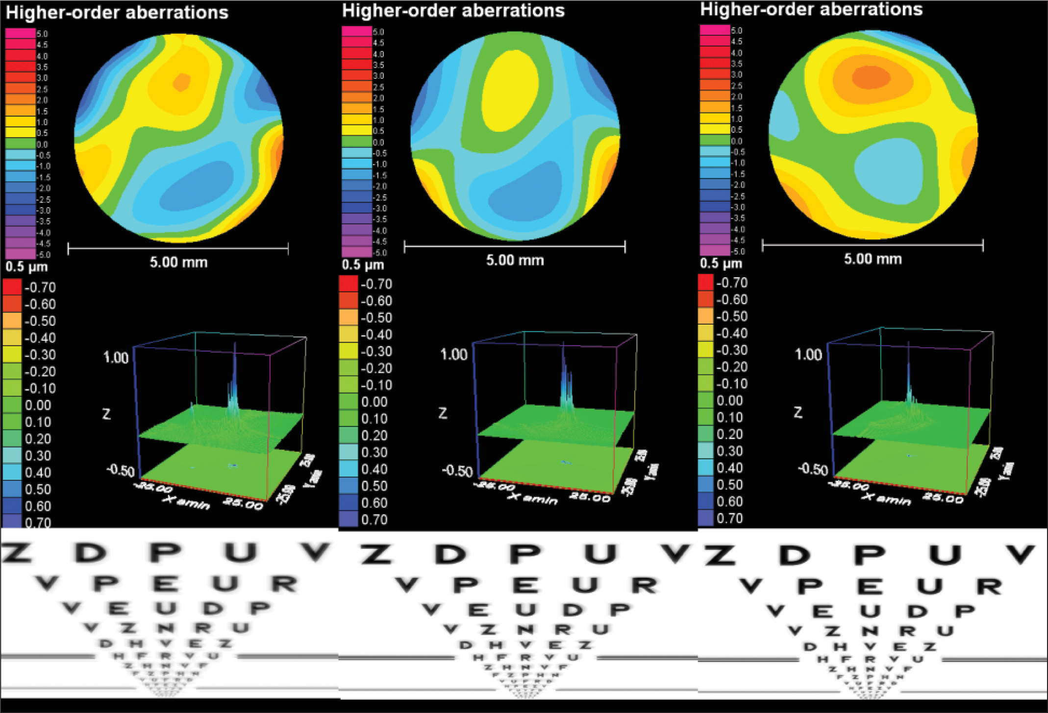 Comparative diagram showing the analysis of the in vivo intraocular optical quality for a 5.0-mm pupil of three cases implanted with one of the three models analyzed in this study. (Left) C-Loop haptic design of the refractive rotationally asymmetric multifocal intraocular lens (MIOL) without using a capsular tension ring (CTR). (Center) C-Loop haptic design of the refractive rotationally asymmetric MIOL using a CTR. (Right) Plate-haptic design of the refractive rotationally asymmetric MIOL. Top row: intraocular wavefront higher-order aberrations. Middle row: three-dimensional point spread function. Bottom row: Snellen optotype simulation considering only the effect of higher-order aberrations. All cases presented similar manifest refractive conditions postoperatively.