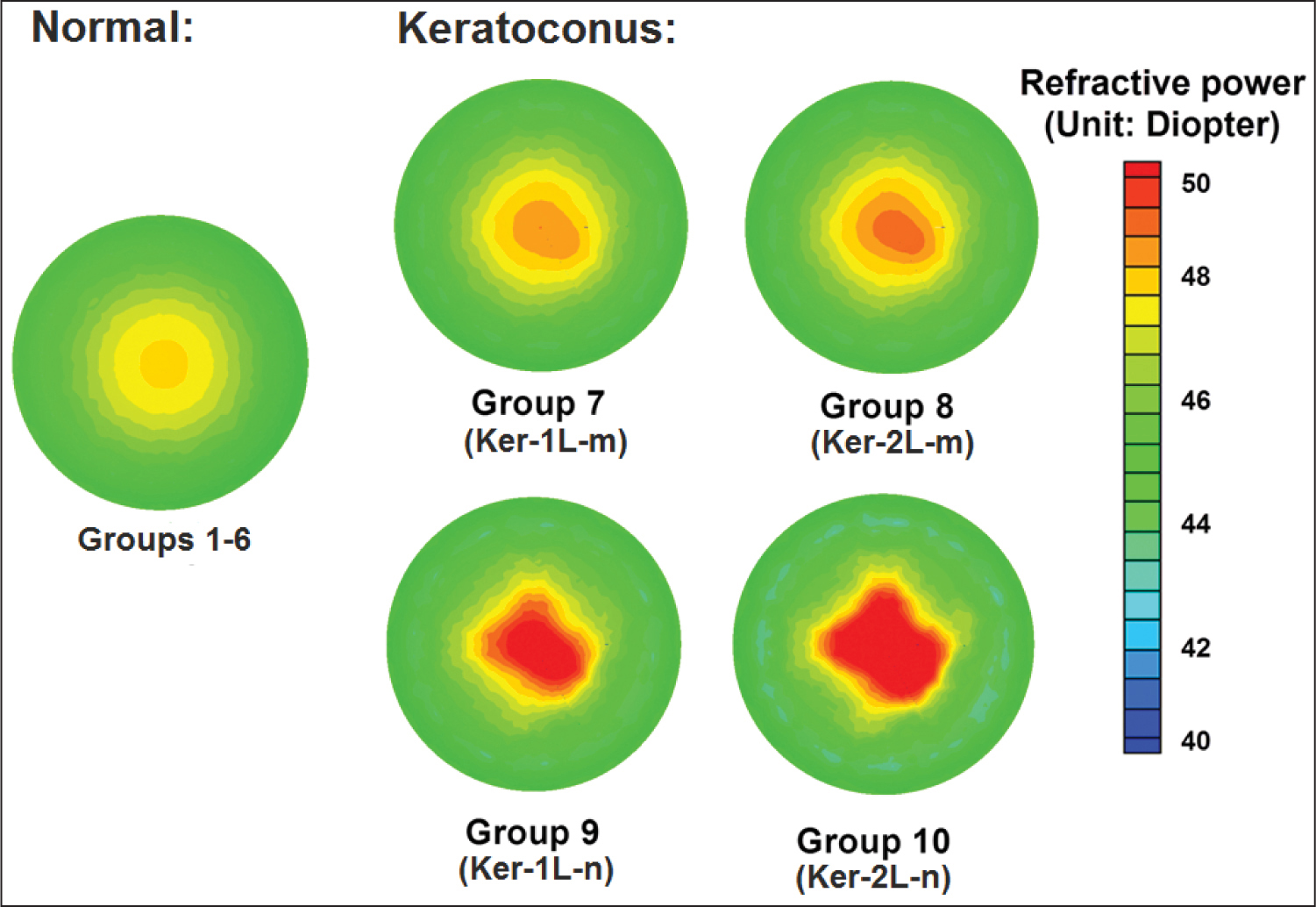 Simulated refractive power maps for normal corneas (groups 1–6) and keratoconic corneas (groups 7–10) when intra-ocular pressure was 16 mm Hg. Central refractive powers for these modes were: groups 1 to 6 (48.05 diopters [D]), group 7 (Ker-1L-m) (49.20 D), group 8 (Ker-2L-m) (49.61 D), group 9 (Ker-1L-n) (52.02 D), and group 10 (Ker-2L-n) (55.01 D).