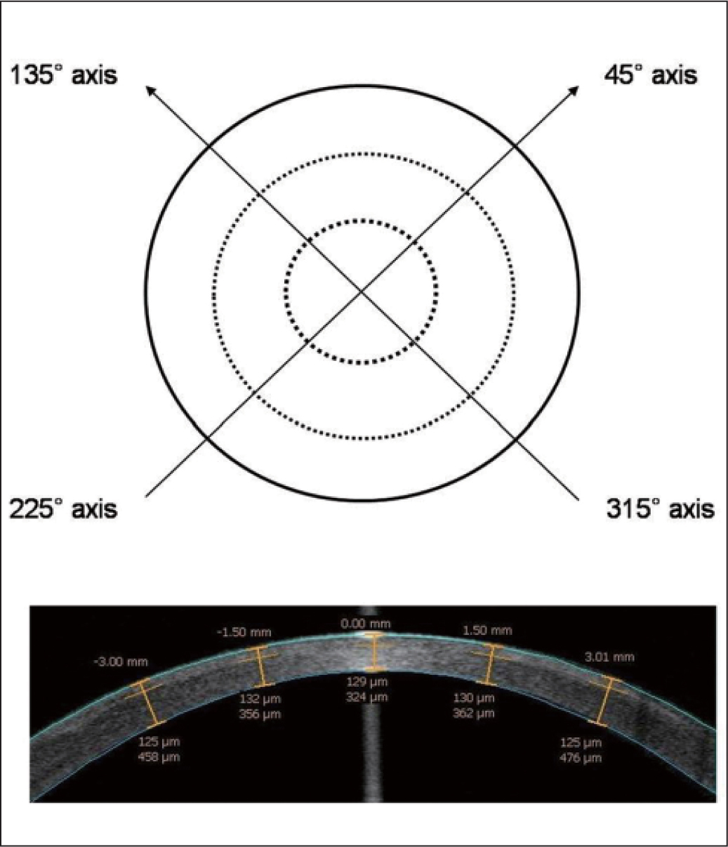 (Top) Method of measuring corneal flap thickness with anterior segment optical coherence tomography (OCT). Flap thickness was measured at the flap center, 1.5-mm zone (inner circle), and 3.0-mm zone (intermediate circle) along a 45° (including 225°) meridian and a 135° (including 315°) meridian from the flap center, for a total of 10 points. (Bottom) Measurement of a 120-μm flap thickness setting at 1 week postoperatively.
