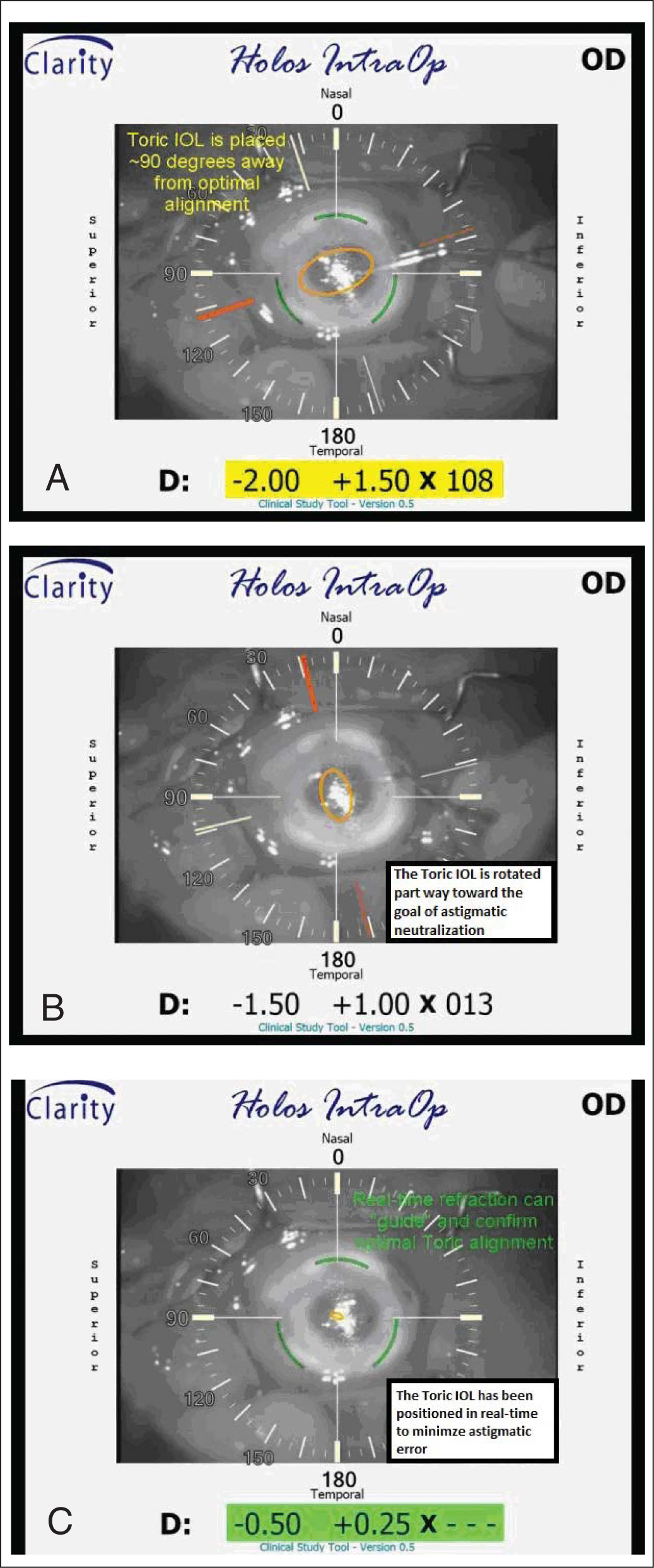 Gradually improving refraction detected by HOLOS (Clarity Medical Systems, Inc., Pleasanton, CA) during the rotational alignment of a toric intraocular lens from (A) approximately 90° away to (B) midway improvement to (C) its final optimal alignment with astigmatic neutralization.