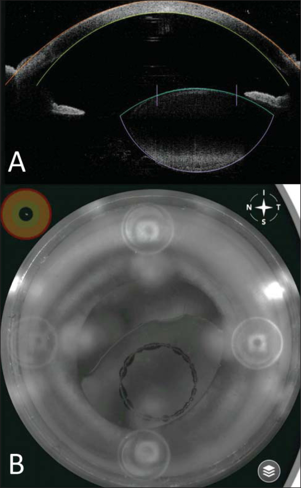 (A) High-resolution optical coherence tomography screenshot showing the automatically detected scanned capsule center (sagittal view). (B) Screenshot of the infrared camera during capsulotomy creation, centered on the scanned capsule.
