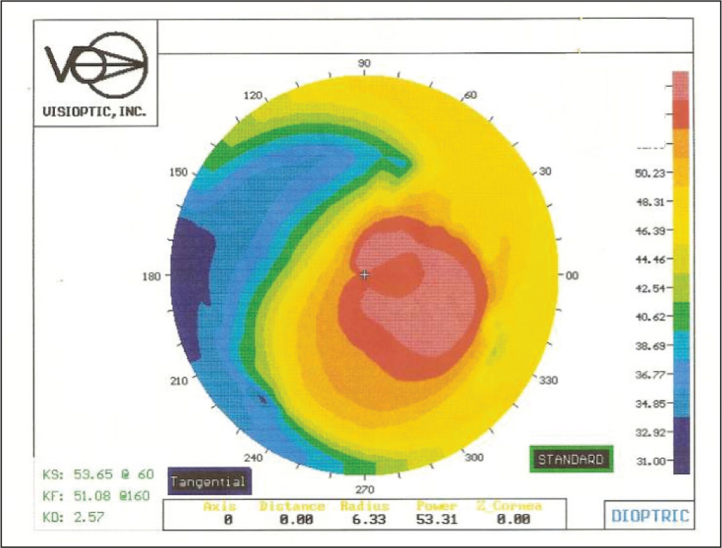 Preoperative corneal topography (Alcon Laboratories, Inc., Fort Worth, TX) of an eye with keratoconus implanted with intrastromal corneal ring segments in 1997.