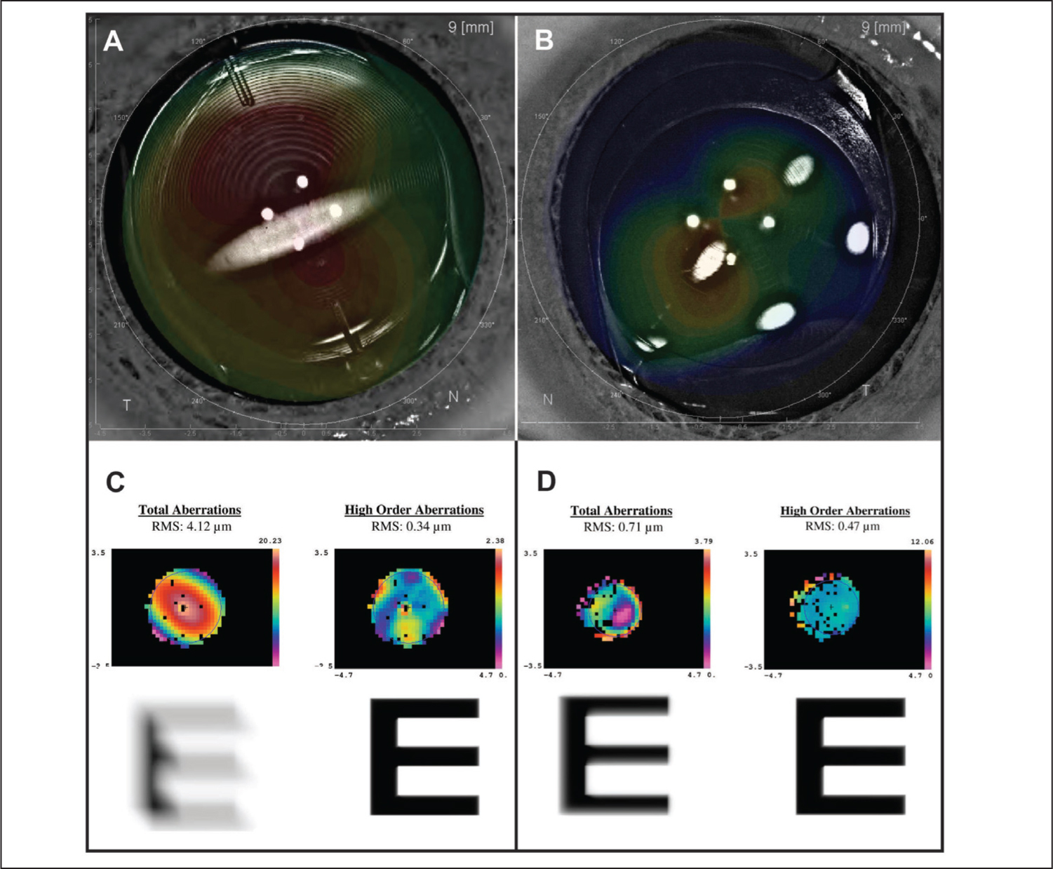 Superimposed dual Scheimpflug images (Galilei dual-Scheimpflug analyzer; Ziemer Group, Port, Switzerland) showing matching topography with clinical images of the multifocal toric intraocular lenses: (A) linear marks of the right eye for case 2 and (B) three dot marks of the left eye for case 1. Aberrometer analysis demonstrated a decrease in total aberrations and improvement in the simulated vision of the left eye (C) preoperatively versus (D) postoperatively for case 2.