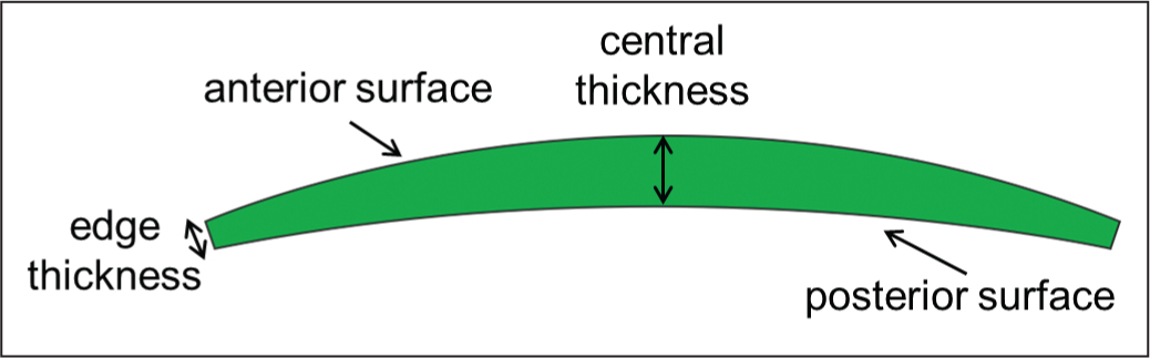 Illustration of corneal lenticule geometry. The minimum edge thickness was 15 μm and the intended central thickness ranged from 117 to 152 μm depending on the spherical correction required.