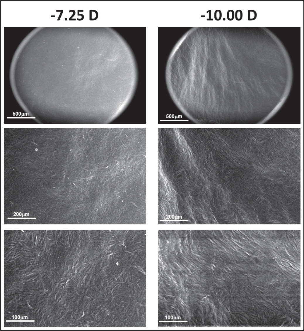 Environmental scanning electron microscope images of the bottom surface of the corneal lenticules taken at 100× (top), 250× (middle), and 500× (bottom). Low magnification images contain the microscope field aperture. The left column corresponds to sample 4 and the right column corresponds to sample 8. D = diopters