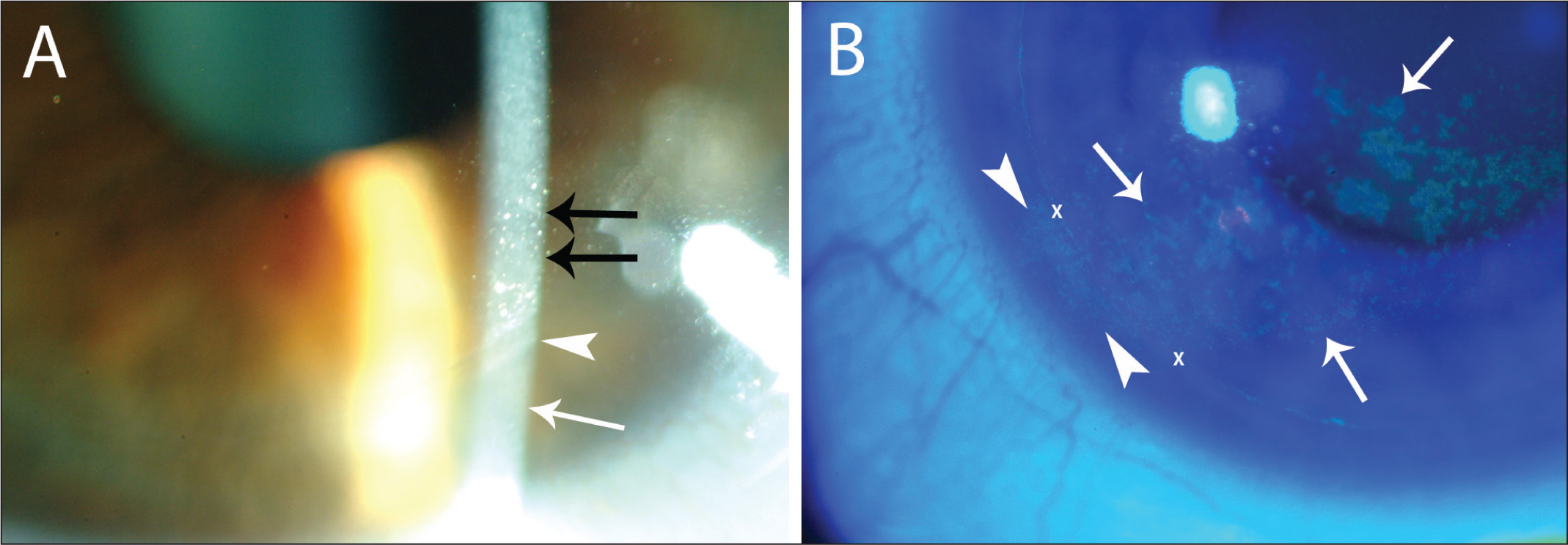 Slit-lamp photographs of corneas with refractive surgery-induced dry eye at 1 month after LASIK (original magnification ×40). (A) Corneal epitheliopathy (black arrows) limited to the flap area. Note that beyond the flap edge (white arrowhead), there are no punctate epithelial erosions of the epithelium outside of the flap (white arrow). (B) Another cornea with 3+ punctate epithelial erosions with fluorescein staining (arrows). Note the presence of punctate epithelial erosion in the peripheral cornea (arrowheads) crossing the flap edges (X).