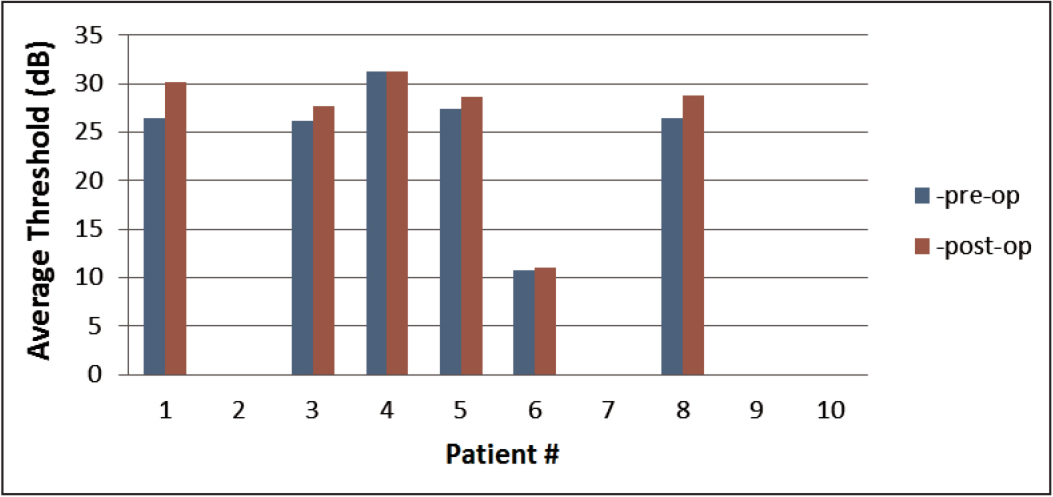 Average threshold sensitivity of all patients. Note that patient 6 shows a significantly low average threshold sensitivity both before (pre-op) and after (post-op) surgery. Note that patients 2, 7, 9, and 10 did not have the follow-up examination; therefore, the change in average threshold sensitivity is not shown.