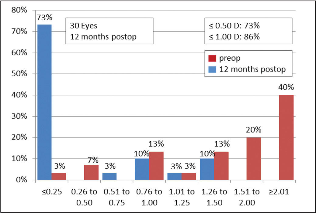 Comparison of preoperative and 12-month postoperative refractive astigmatism after toric intraocular lens implantation.