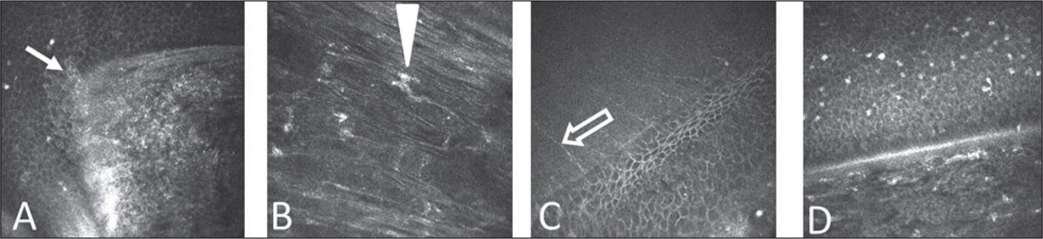In vivo confocal microscopic images of the corneal graft–host junction zone in Fuchs' dystrophy after (A) excimer laser-assisted penetrating keratoplasty (ELAK) and (B) femtosecond laser-assisted keratoplasty (FLAK) in keratoconus after (C) ELAK and (D) FLAK. Orientation tooth after ELAK is indicated with a white arrow (A). Some fibroblasts (arrowhead) in the (B) fibrotic tissue, (C) gracile subepithelial nerve plexi, (D) and inflammatory cells in the interface and epithelial cells are visible.