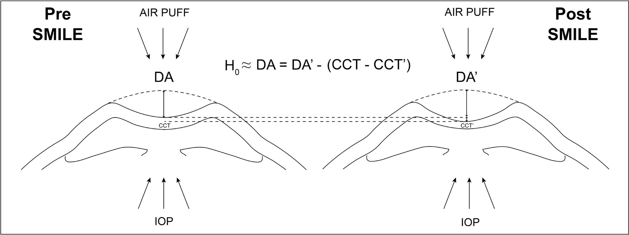 Schematic showing the definition of corrected deformation amplitude (DA) depending on the removed corneal thickness. CCT = central corneal thickness; CCT' = central corneal thickness at 1 month postoperatively; DA' = deformation amplitude at 1 month postoperatively; IOP = intraocular pressure; SMILE = small incision lenticule extraction