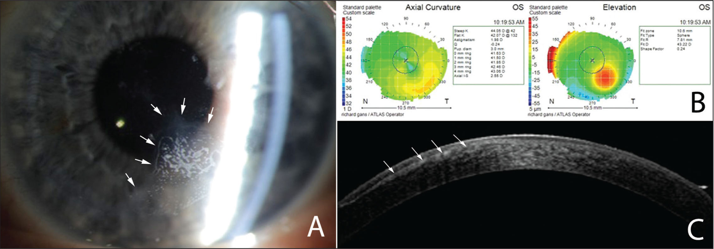 (A) Slit-lamp photograph of epithelial ingrowth (arrows) after LASIK with a mechanical microkeratome. (B) Corneal topography shows induced changes on corneal curvature and elevation that simulate ectasia. These changes disappeared after removal of the epithelial ingrowth (not shown). (C) Optical coherence tomography provided the location (arrows) of the cells between the flap and the posterior corneal stromal bed.