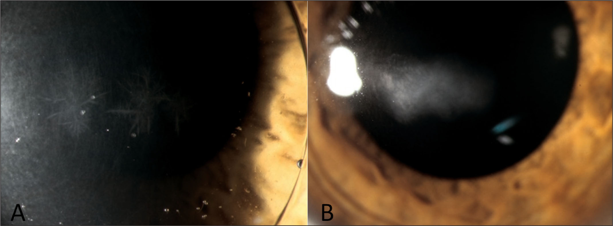 (A) Infectious crystalline keratopathy in a 16-year-old patient 3 weeks after corneal cross-linking; when presenting, the patient was already wearing a rigid gas-permeable contact lens on the treated eye. (B) Central stromal scarring 18 months later in the same patient.