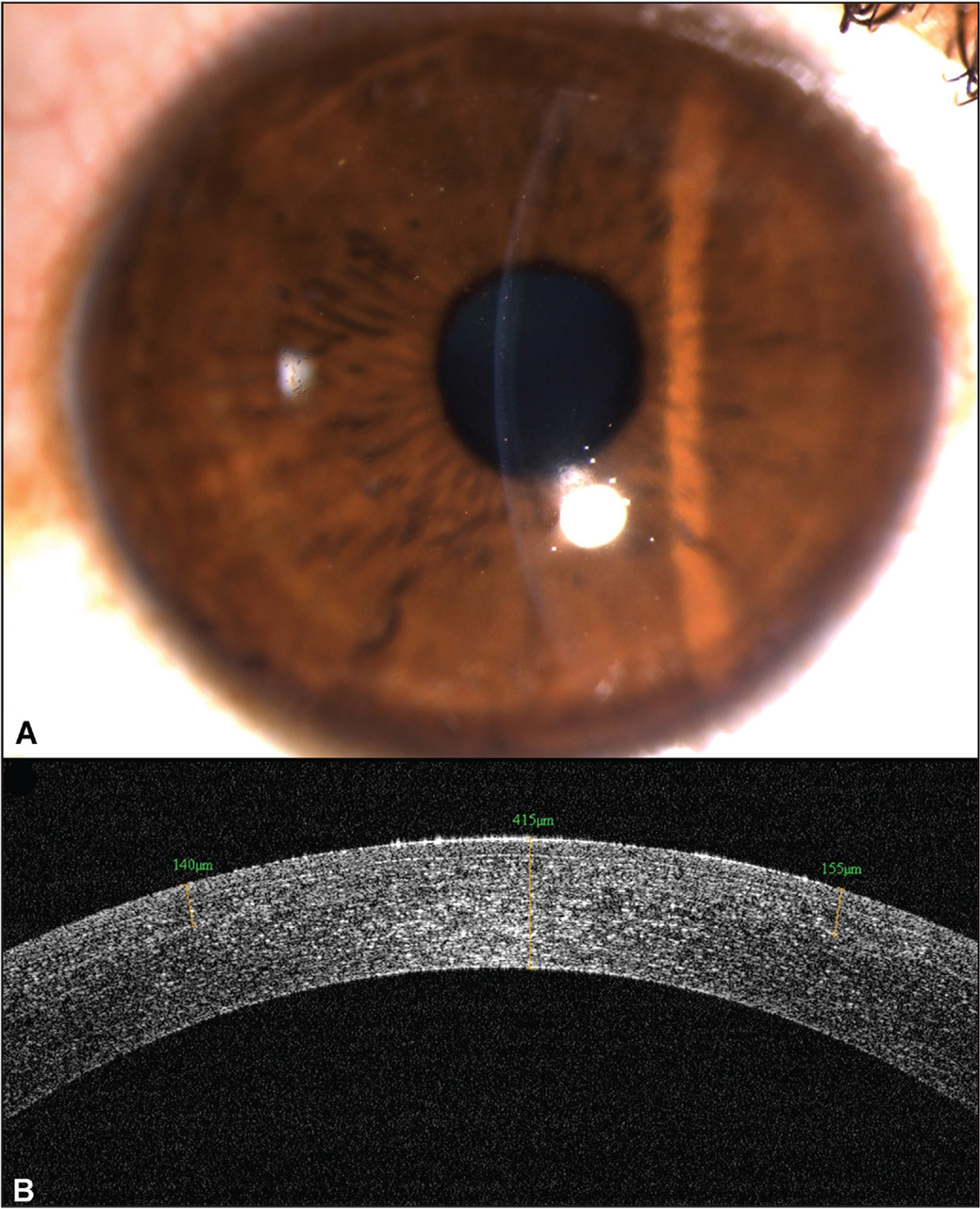 (A) Postoperative day 1 clinical picture showing mild interface haze. (B) Anterior segment optical coherence tomography confirmed the well-apposed, smooth, regular interface without any lenticule remnants.