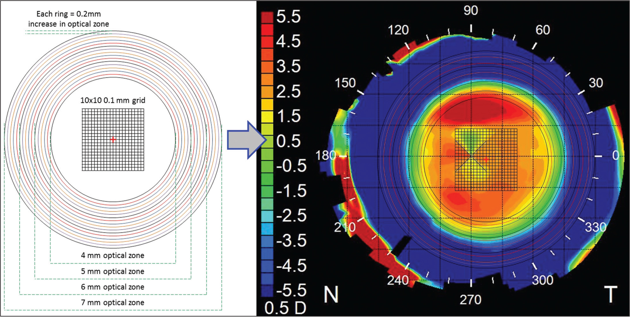 A central grid and set of concentric circles was generated and overlaid on the tangential difference map to identify the location of the optical zone. The central grid consisted of 10 × 10 0.1-mm steps. The concentric circles were created with radii increasing in 0.2-mm steps from 4 to 7 mm. The concentric circles were used to visually align and superimpose the best-fitting circle to the optical zone defined as the central zone up to the mid-peripheral power inflection point. The centration offset of the optical zone to the corneal vertex was determined according to the central grid.