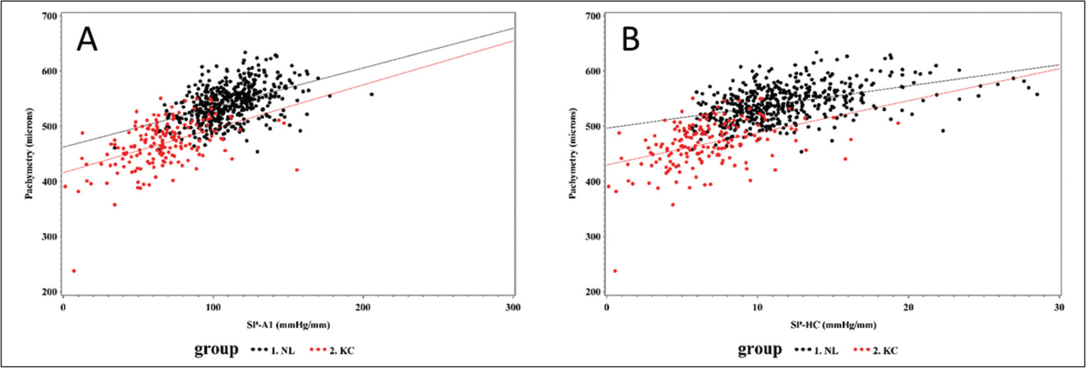 Regression analysis of pachymetry vs (A) stiffness parameter applanation 1 (SP-A1) and (B) stiffness parameter highest concavity (SP-HC), both showing that thicker corneas tend to be stiffer in both normal (black) and keratoconic (red) eyes. Note that SP-A1 shows greater separation between keratoconic (KC) eyes and normal (NL) eyes.