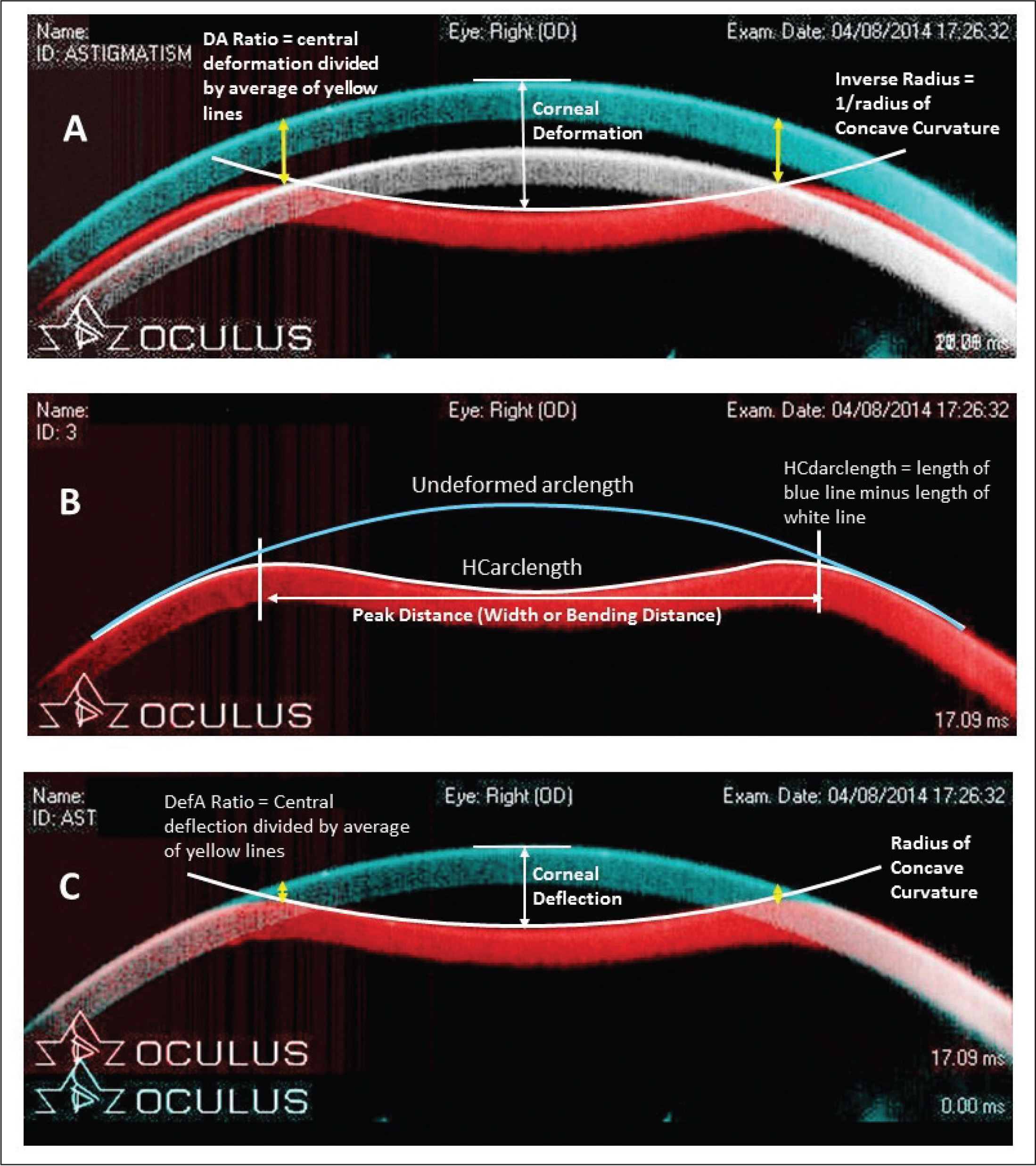 Superimposed frames extracted from a single examination, showing (A) cornea in the predeformation phase (pseudocolored blue), at maximal corneal deflection (pseudocolored red), and at maximal whole eye movement (pseudocolored white); (B) cornea at maximum deflection (highest concavity) with illustration of displacement from predeformation anterior surface arc (blue line); and (C) correction for whole eye motion by aligning all corneal positions to that at predeformation. Note the example shown is from the cornea with the greatest magnitude of whole eye motion in the entire dataset for illustration of multiple phases, and therefore represents an extreme value. Note also that maximal whole eye motion occurred after corneal deflection had recovered completely.