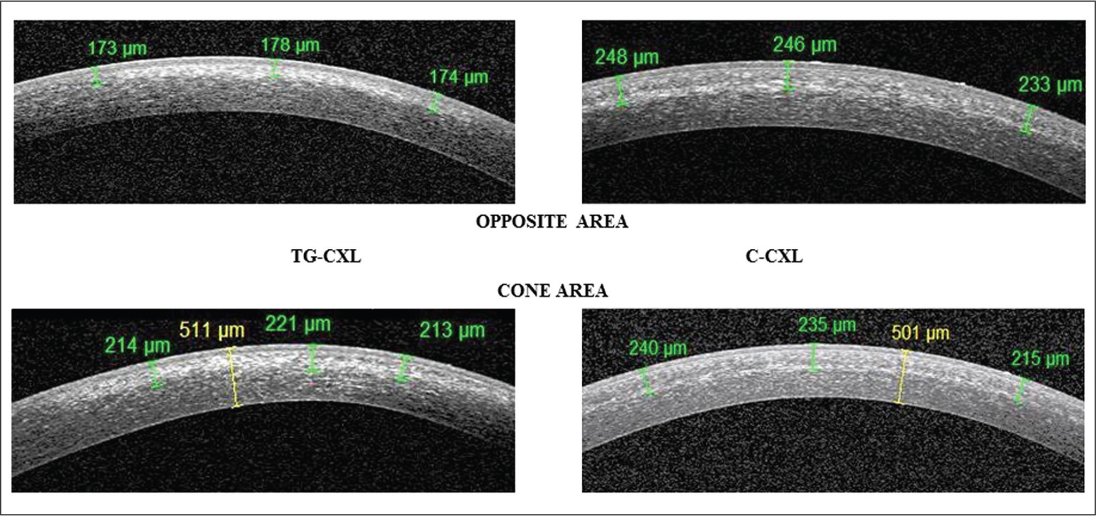 Examples of corneal stromal demarcation line in both groups at 1 month. In the topography-guided corneal collagen cross-linking (TG-CXL) group, the mean demarcation line depth is more important in the cone area than in the surrounding area. In the conventional corneal collagen cross-linking (C-CXL) group, the demarcation line is as deep in the cone area as in the surrounding area.