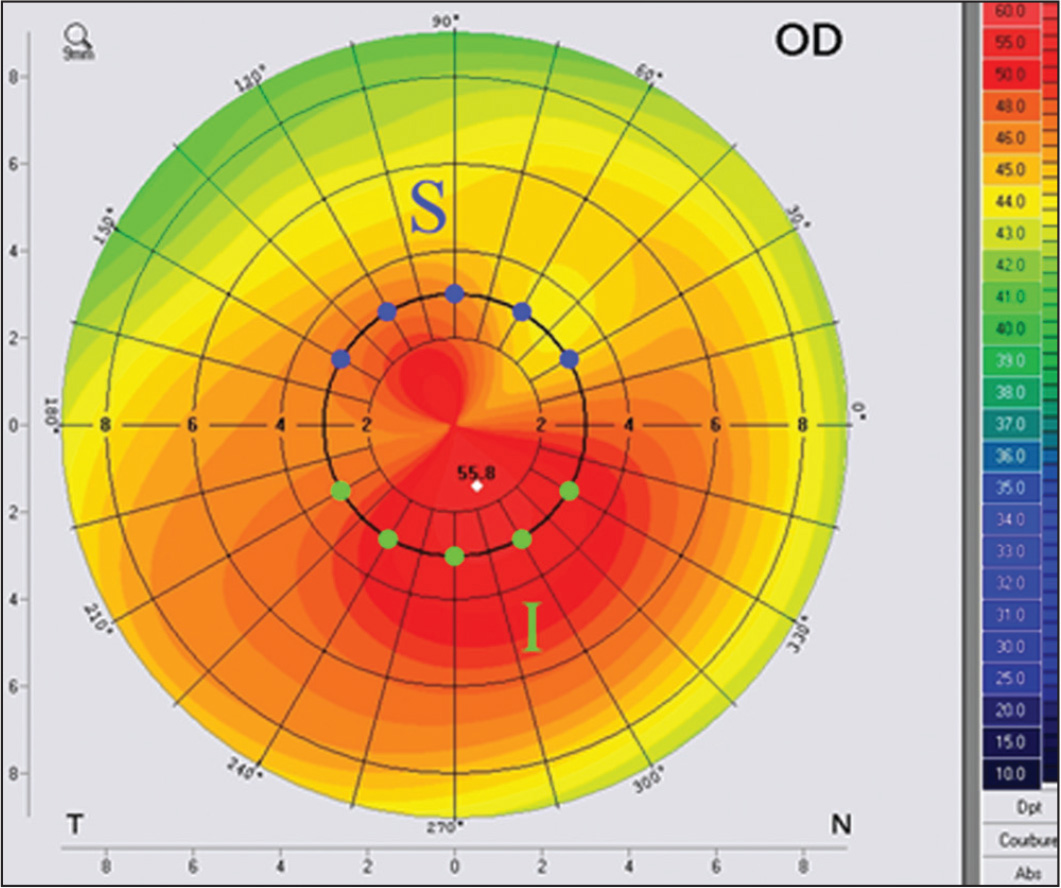 Superior (S) and inferior (I) index calculated on a topography map.
