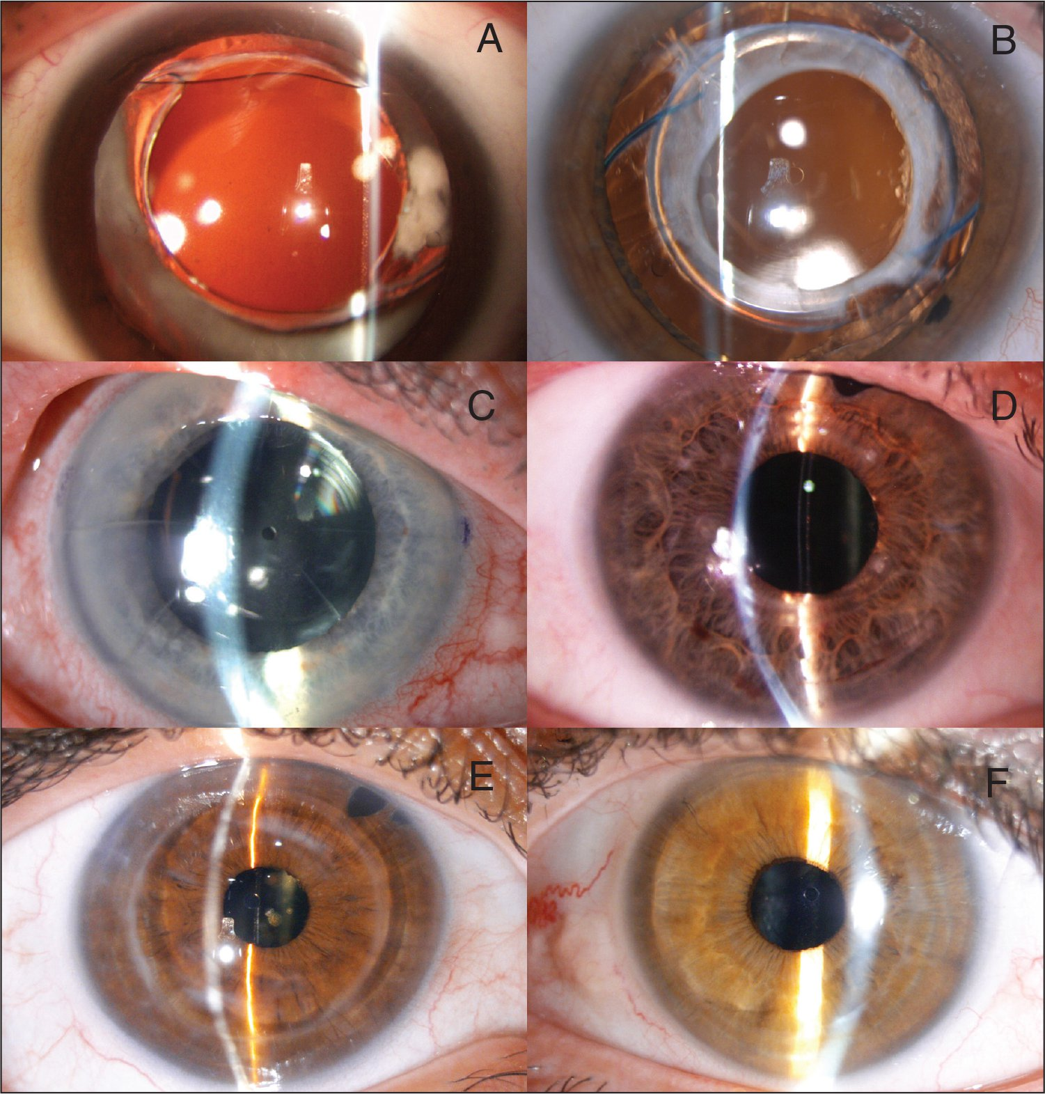 Example of different eyes implanted with an Implantable Collamer Lens (ICL) (STAAR Surgical, Inc., Monrovia, CA). (A) Virgin cornea group, (B) excimer laser group, (C) radial keratotomy group, (D) intrastromal corneal ring segments group, (E) penetrating keratoplasty group, and (F) deep anterior lamellar keratoplasty group.