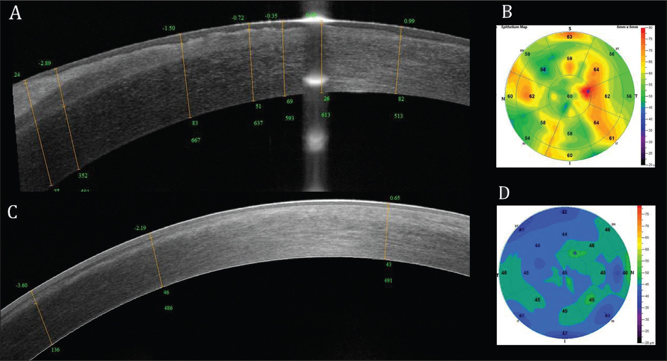 (A–B) Preoperative and (C–D) postoperative anterior segment optical coherence tomography and epithelial maps. Presence, depth, and thickness of the subepithelial membrane is easily detected and measured. Note stromal opacity extending down to 352 μm.