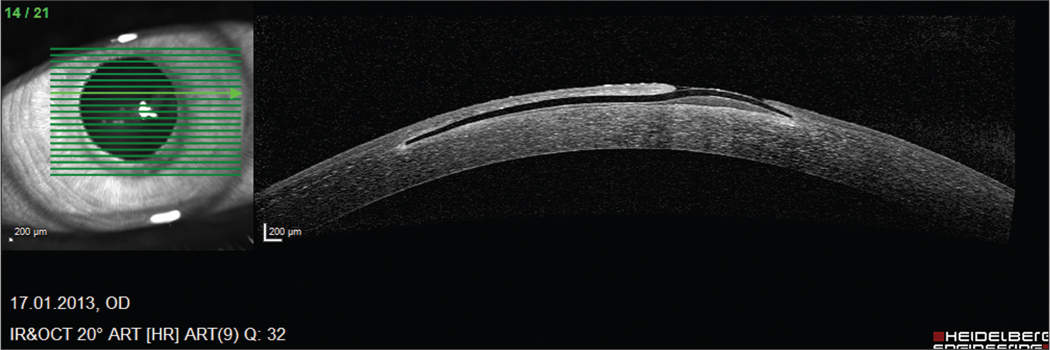 Anterior segment optical coherence tomography (Spectralis OCT; Heidelberg Engineering, Heidelberg, Germany) displaying flap melt immediately before explantation of corneal inlay.