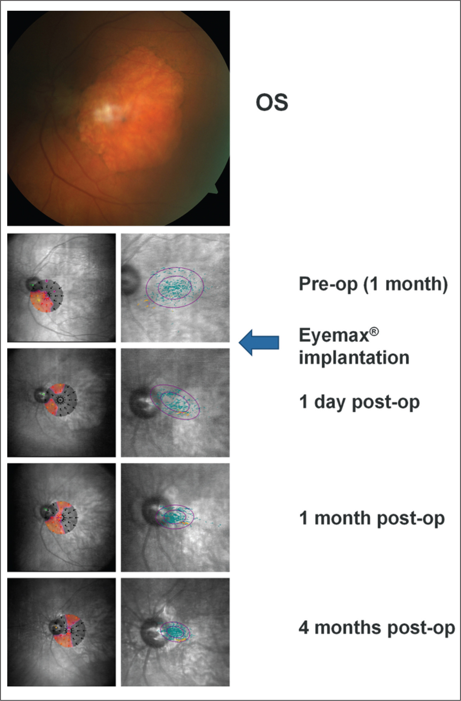 Preoperative color fundus photograph and microperimetric images obtained at baseline and 1 day, 1 month, and 4 months after implantation of the Eyemax mono intraocular lens (IOL) (LEH Pharma, London, United Kingdom) (eye 8). Color fundus photograph of the left eye in an 86-year-old woman (top panel; right eye is shown in Figure FA) confirming a large area of geographic atrophy and minimal cataract. Left panels show interpolated sensitivity maps demonstrating the sensitivity at each point of the retina using information from nearby stimuli at baseline and post-implantantion. Right panels show fixation points (blue dots; orange fixation dots represent points used in the first 10 seconds of the test) with bivariate contour ellipse area analysis; the smaller ellipse contains 63% of all fixation points and the larger ellipse contains 95% of all fixation points. Threshold sensitivity at baseline is close to zero, with only a few stimuli seen in an area inferotemporal to the disc, and fixation points are spread over a wide area centered within the area of geographic atrophy. Threshold sensitivities remained largely unchanged postoperatively but fixation shifted so that the preferred retinal locus exploited a narrow corridor of functioning photoreceptors between the optic disc and the area of geographic atrophy. These changes were associated with a progressively more tightly focused cluster of fixation points centered outside of the area of geographic atrophy (mean percentage of fixation points within a 4° circle increased from 57% at baseline to 93% at 4 months postoperatively).