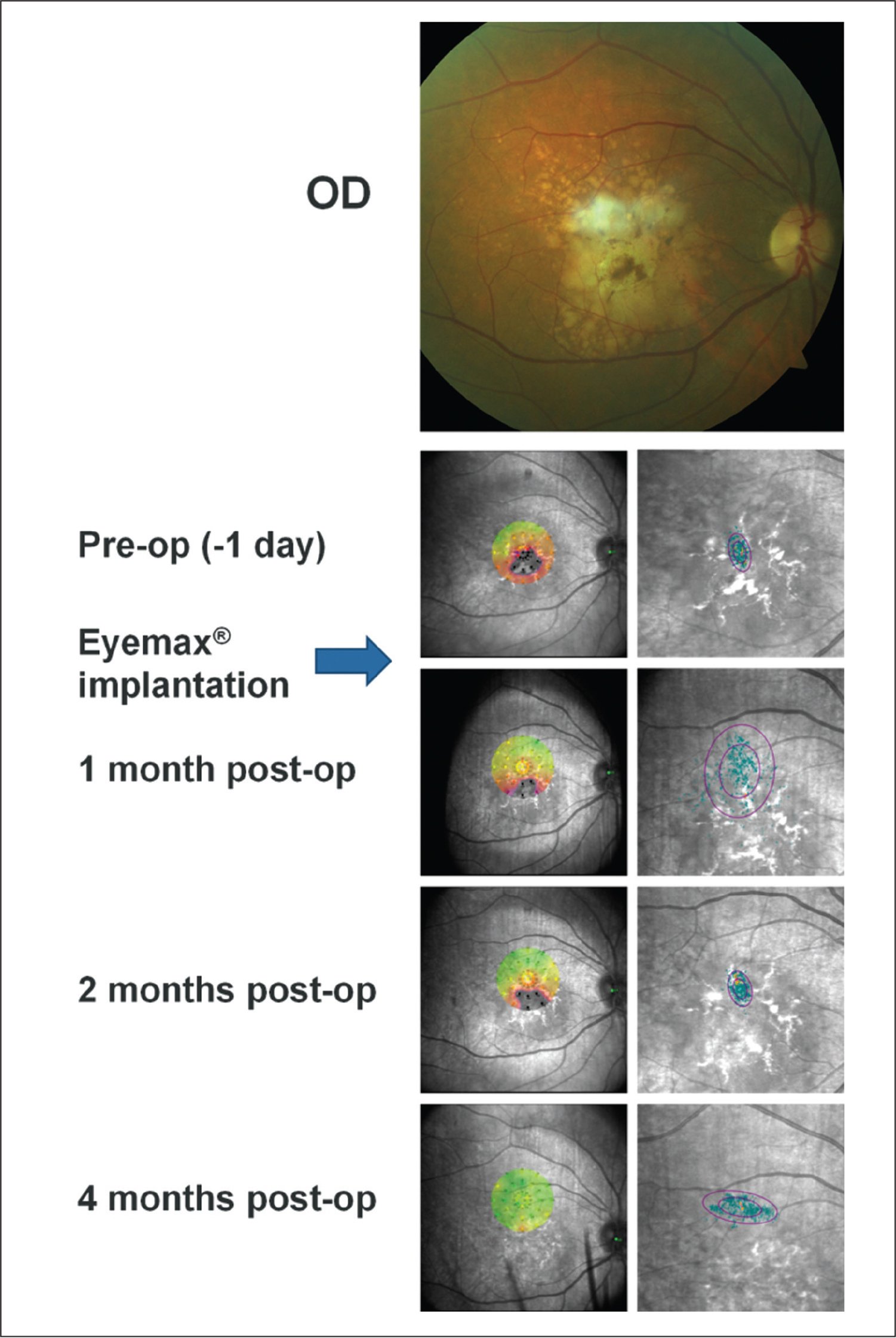 Preoperative color fundus photograph and microperimetric images obtained at baseline and 1, 2, and 4 months after implantation of the Eyemax mono intraocular lens (IOL) (LEH Pharma, London, United Kingdom) (eye 2). Color fundus photograph of the right eye in a 65-year-old woman (top panel) confirming a large disciform scar with soft drusen superiorly and minimal cataract. Left panels show interpolated sensitivity maps at baseline and post-implantation demonstrating the sensitivity at each point of the retina using information from nearby stimuli. Right panels show fixation points (blue dots; orange fixation dots represent points used in the first 10 seconds of the test) and bivariate contour ellipse area analysis; the smaller ellipse contains 63% of all fixation points and the larger ellipse contains 95% of all fixation points. At baseline, the sensitivity map shows a large central scotoma, as indicated by unseen stimuli (black dots), and an area of better sensitivity at the superior border of the scar. The adjacent baseline fixation plot shows fixation is tightly centered within the disciform scar. At 2 months postoperatively, the central scotoma is beginning to shift outside of the sensitivity map as the center of fixation moves superiorly. At 2 months postoperatively, threshold sensitivity is observed to increase and fixation becomes more tightly focused at the superior border of the disciform scar. At 4 months postoperatively, unseen stimuli are completely absent from the sensitivity map as the preferred retinal locus shifts to take advantage of healthier retina superior to the disciform scar with resulting improvement in average threshold sensitivity (from 12.9 dB at baseline to 27 dB at 4 months postoperatively). Stimuli are located 2.5° apart, thereby permitting, with reference to retinal landmarks, an estimate of the how far the preferred retinal locus has moved from baseline, approximately 8°. The fixation plot confirms a redistribution of fixation points to the superior retina well away from the disciform scar.