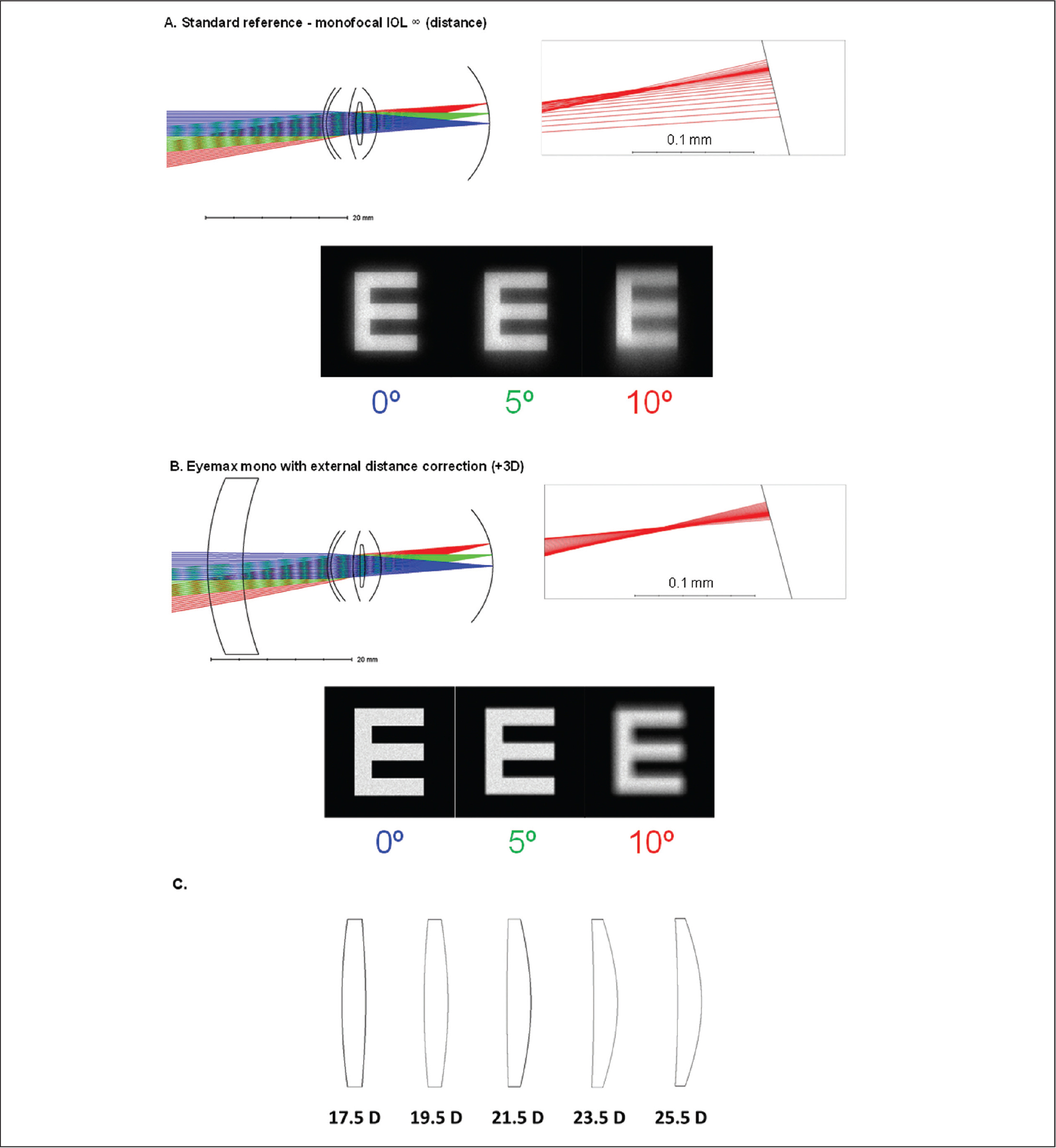 Ray-tracing diagrams of a schematic eye and simulated retinal images at 0º, 5º, and 10º of retinal eccentricity with (A) a standard monofocal intraocular lens (IOL) and (B) the Eyemax mono IOL (LEH Pharma, London, United Kingdom) with external spectacle correction. (C) Representative Eyemax IOLs for different powers are also shown. Rays at different eccentricities are represented in different colors: blue lines at 0° of retinal eccentricity, green lines at 5°, and red lines at 10°. The effect of each arrangement at 10° is shown in more detail to the right of each of the schematic eyes and the simulated retinal images of Snellen E optotypes at each eccentricity (sized for 0.4 decimal visual acuity) are shown below. The standard monofocal IOL is observed to generate image blur at progressive retinal eccentricities and this is most obvious at 10° of retinal eccentricity, with significant degradation of the simulated retinal images. Rays at the same eccentricities are much more tightly focused in the arrangement with the Eyemax IOL, which is designed to optimize image quality in all areas of the macula up to 10° of retinal eccentricity, resulting in a significant improvement in the quality of the simulated retinal images. The Eyemax IOL may be used to target emmetropia but the use of the external spectacle correction affords 14% magnification for distance with additional magnification for near. (C) A set of representative Eyemax IOLs shows that the dioptric power under the lenses corresponds to the IOL power that would generate emmetropia in every eye. D = diopters