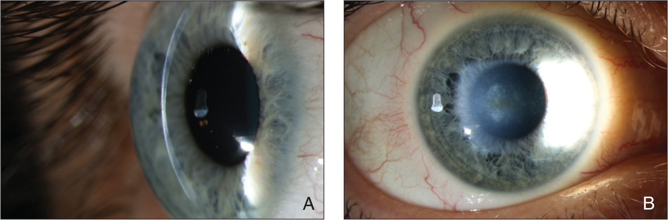 Slit-lamp photograph of the right eye with (A) slit-illumination and (B) broad beam illumination. A deep stromal scar that developed after corneal cross-linking is evident.
