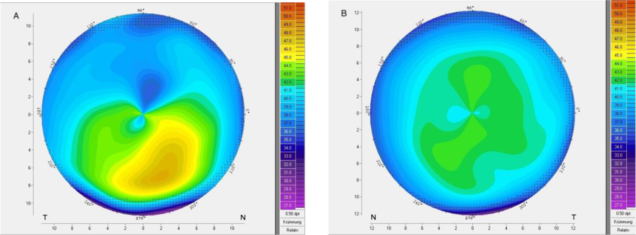 Corneal topography of patient 9 with very asymmetric keratoconus showing (A) ectasia and (B) regular topography in the fellow eye.