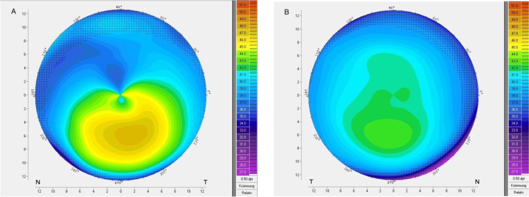 Corneal topography of patient 29 with very asymmetric keratoconus showing (A) ectasia and (B) regular topography in the fellow eye.
