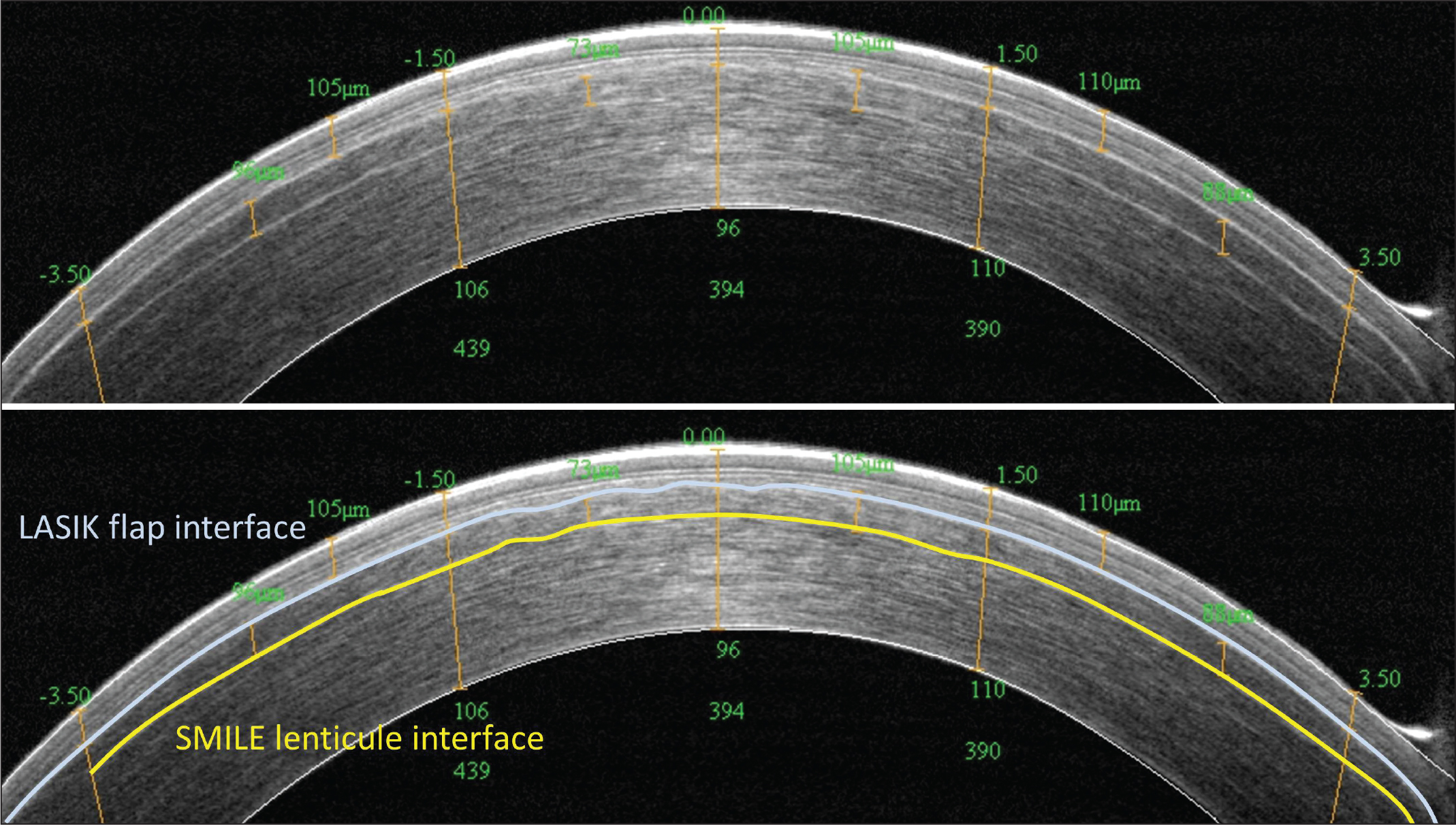 Optical coherence tomography B-scan (vertical) immediately following treatment in which small incision lenticule extraction (SMILE) was aborted due to significant eye movements creating discontinuities in the lenticule and cap interfaces. The treatment was converted to laser in situ keratomileusis (LASIK) using a 90-μm flap thickness, which was successfully completed. The two interfaces were clearly visible, with both showing significant undulations caused by the eye movements during femtosecond laser cutting. These undulations would have resulted in an irregular lenticule if the SMILE procedure had been continued. However, a non-uniform LASIK flap does not affect the outcome because the flap fits together with the stromal bed in a lock-and-key fashion. Reprinted with permission from Reinstein DZ, Archer TJ, Carp GI. The Surgeon's Guide to SMILE: Small Incision Lenticule Extraction. Thorofare, NJ: SLACK Incorporated; 2018.