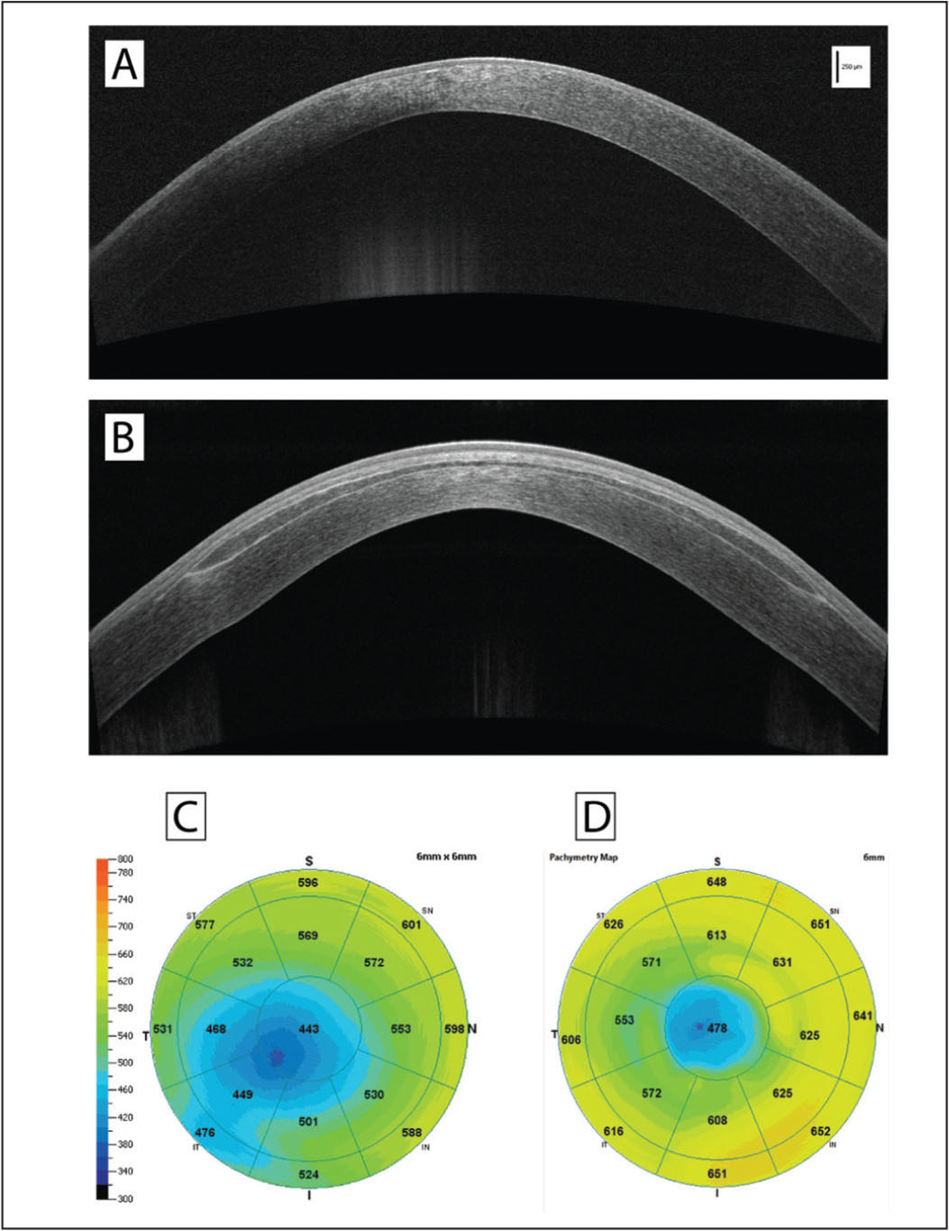 High-resolution anterior segment optical coherence tomography (OCT) scans of the recipient cornea (A) before and (B) 6 months after surgery and (C and D) corresponding OCT pachymetry maps. The intrastromal lenticule appears well centered and integrated with its profile identifiable within the recipient stroma. Lenticule interfaces show moderate reflectivity in the central zone, whereas the stromal component of the lenticule presents a lower reflectivity compared to the surrounding recipient stroma. Pachymetry maps show a corneal thickness increase in both central corneal cone apex and mid-peripheral cornea after surgery, consistent with the lenticule morphology.