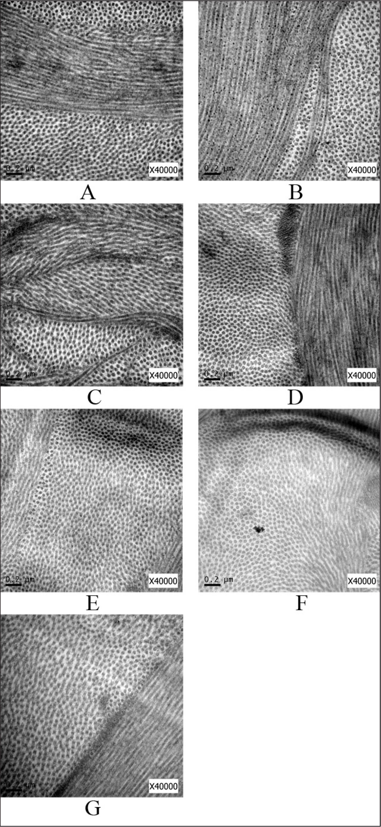 Images of collagen fibrils in the anterior stroma obtained using transmission electron microscopy with 40,000 magnification. (A) 3mW/30min group, (B) 9mW/10min group, (C) 18mW/5min group, (D) 30mW/3min group, (E) 45mW/2min group, (F) 90mW/1min group, (G) no irradiation (NUVA) group.