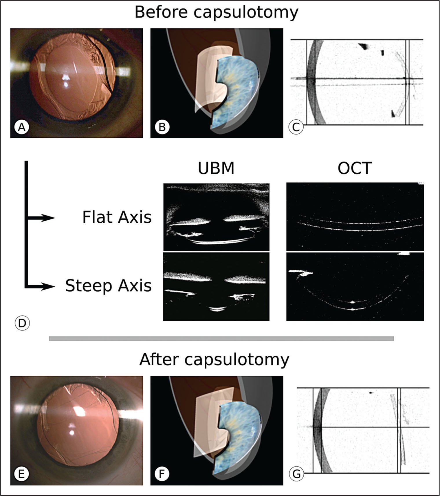 Multimodal imaging and modeling of the intraocular lens (IOL) (A–D) before and (E–G) after capsulotomy. (A) Slit-lamp photograph shows the oval-shaped anterior capsulotomy and capsule fibrosis that are predominant in the inferior and superior regions. Cross-sections of flat and steep axes of the IOL are imaged using ultrasound biomicroscopy (UBM) (D left column) and Visante optical coherence tomography (OCT) (Carl Zeiss Meditec AG, Jena, Germany) (D right column). IOL shape is modeled in three dimensions (B). IOLMaster 700 swept-source OCT (Carl Zeiss Meditec AG) (C) shows a horizontal cross-section of the IOL before capsulotomy. After capsulotomy, (E) slit-lamp photograph, (F) three-dimensional modeling, and (G) IOLMaster 700 swept-source OCT show restoration of normal shape of IOL. (Illustrations by Damien Gatinel).