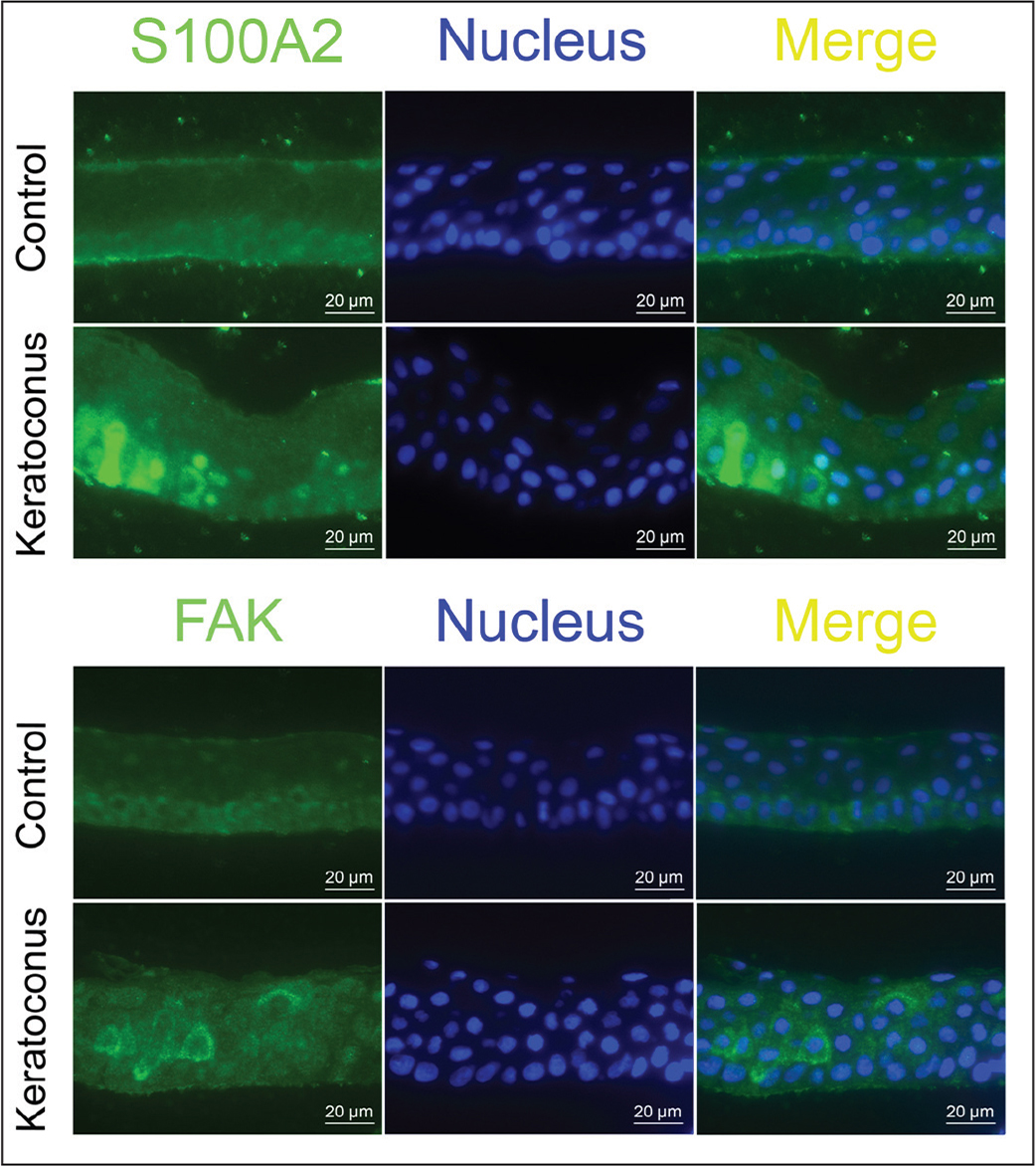 Immunofluorescence analysis of S100A2 and focal adhesion kinase (FAK) proteins in normal and keratoconic corneal epithelia. Higher expression of S100A2 protein was observed in the basal cell layer of keratoconic corneal epithelium compared to that of normal corneal epithelium, whereas FAK only showed slightly increased expression in the wing cell layer.