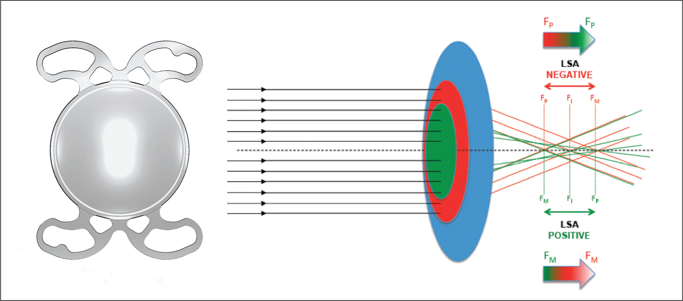 Design and optical principles of the Mini Well (SIFI, Catania, Italy) extended depth-of-focus intraocular lens. (Left) Front image of the lens. (Right) The inner green zone induces a positive spherical aberration with marginal foci (FM) anterior to the paraxial foci (FP); the intermediate red zone induces a negative spherical aberration with FM posterior to FP. The distance between the FP of negative and positive aberration corresponds to continuum foci.