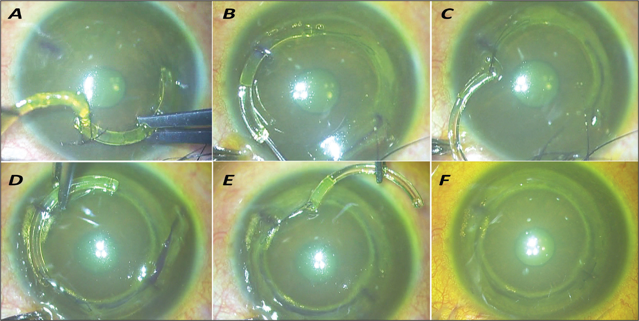 Corneal allogenic intrastromal ring segments (CAIRS) implantation. (A) Intacs (Addition Technology, Inc., Sunnyvale, CA) tied via the positioning hole to the CAIRS is passed through the femtosecond laser–dissected channel. (B) The CAIRS is pulled into the channel behind the Intacs. (C) Intacs is drawn out of the opposite incision, leaving the first CAIRS within the channel. (D–E) The same is repeated on the other side. (F) Both CAIRS are seen lying within the femtosecond laser–dissected channel.