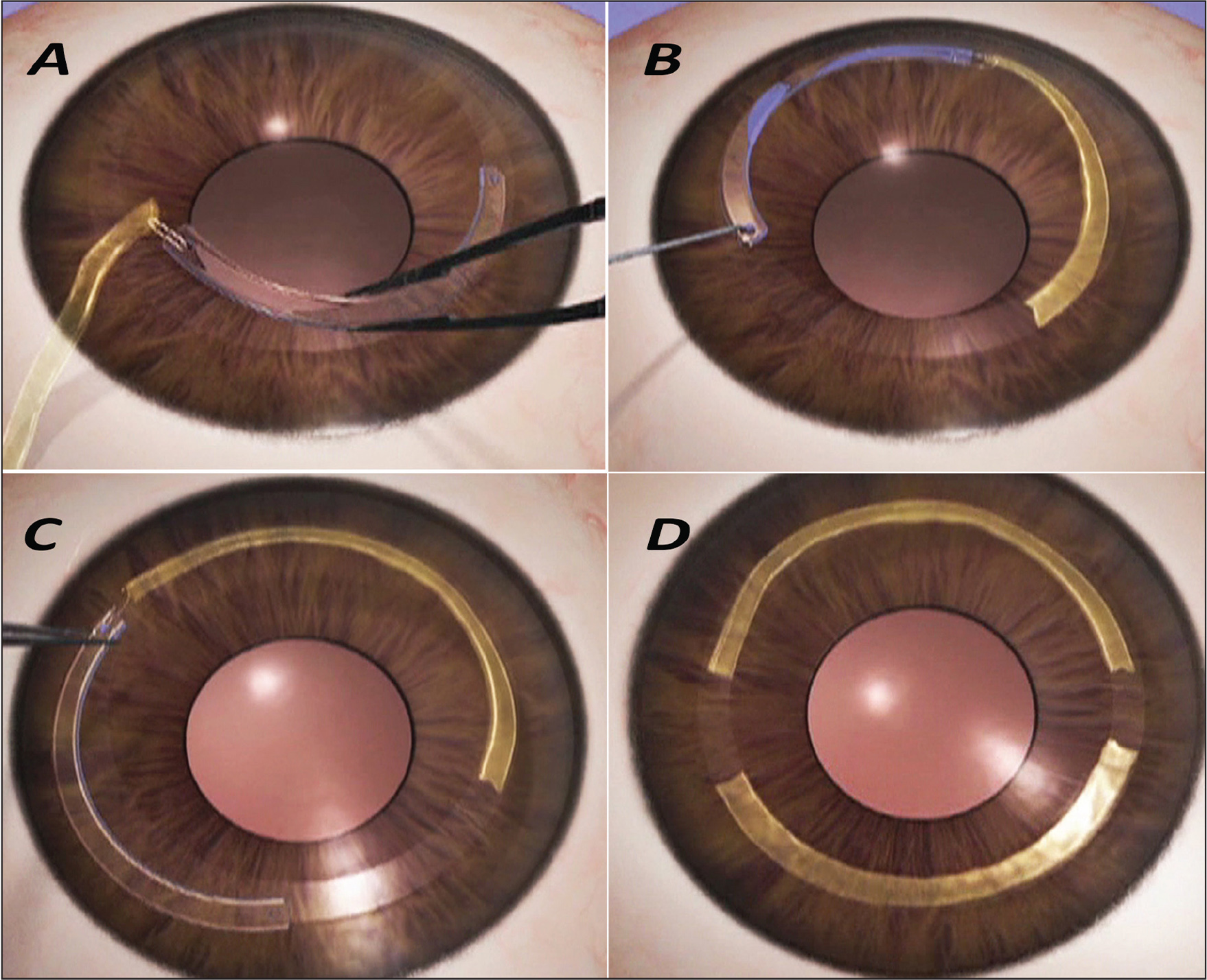 Intacs (Addition Technology, Inc., Sunnyvale, CA) used as an instrument to implant corneal allogenic intrastromal ring segments (CAIRS). (A) CAIRS tied to the positioning hole of the Intacs is drawn into the femtosecond laser–dissected channel behind the Intacs. (B) The Intacs is drawn out of the opposite incision, leaving the first CAIRS within the channel. (C) The same is repeated on the opposite side. (D) Both CAIRS lie within the channel.