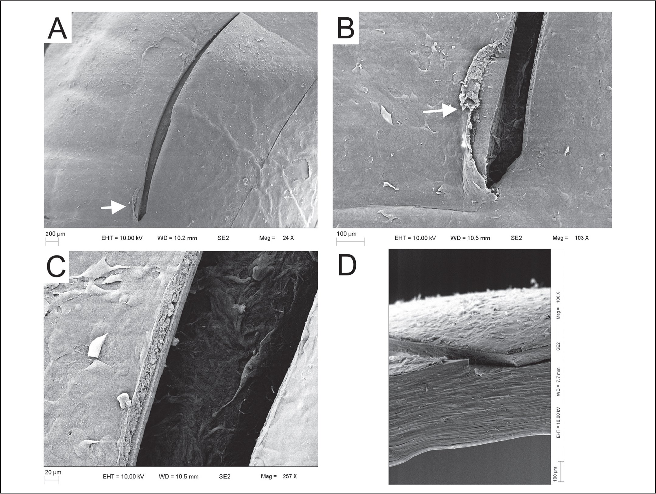 En face scanning electron microscopy of small incision lenticule extraction incision at (A) 24×, (B) 103×, and (C) 257× magnification. The white arrows indicate a small area of epithelial detachment at the side of the incision. (D) Incision architecture as viewed from the sagittal dissection at 100× magnification.
