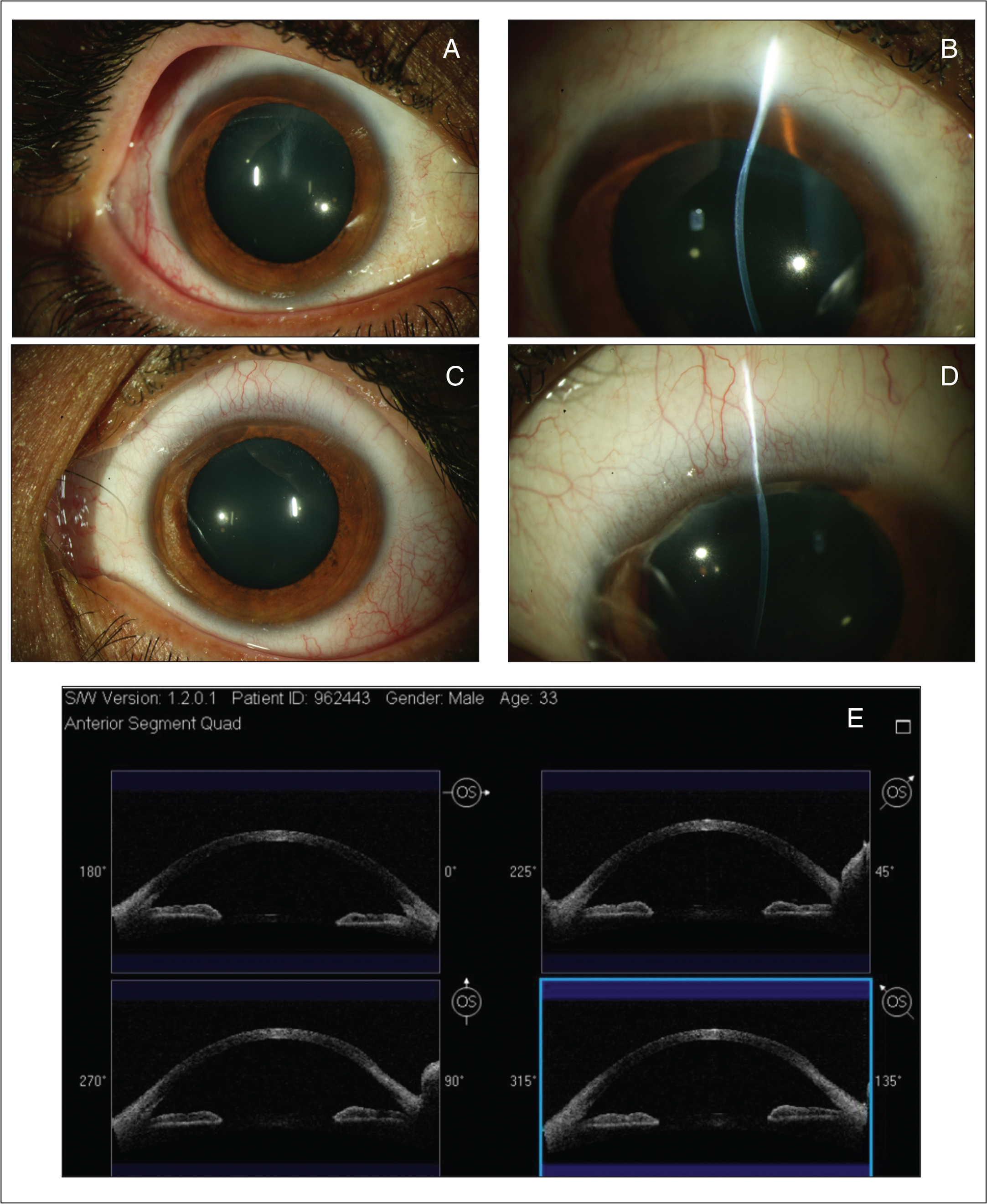 (A–B) Slit-lamp images showing a stabilization of the disease in the right eye 4 years after treatment with corneal cross-linking. However, (C–D) the left eye presented with an increase in the superior corneal thinning, confirmed by (E) the anterior segment optical coherence tomography images.