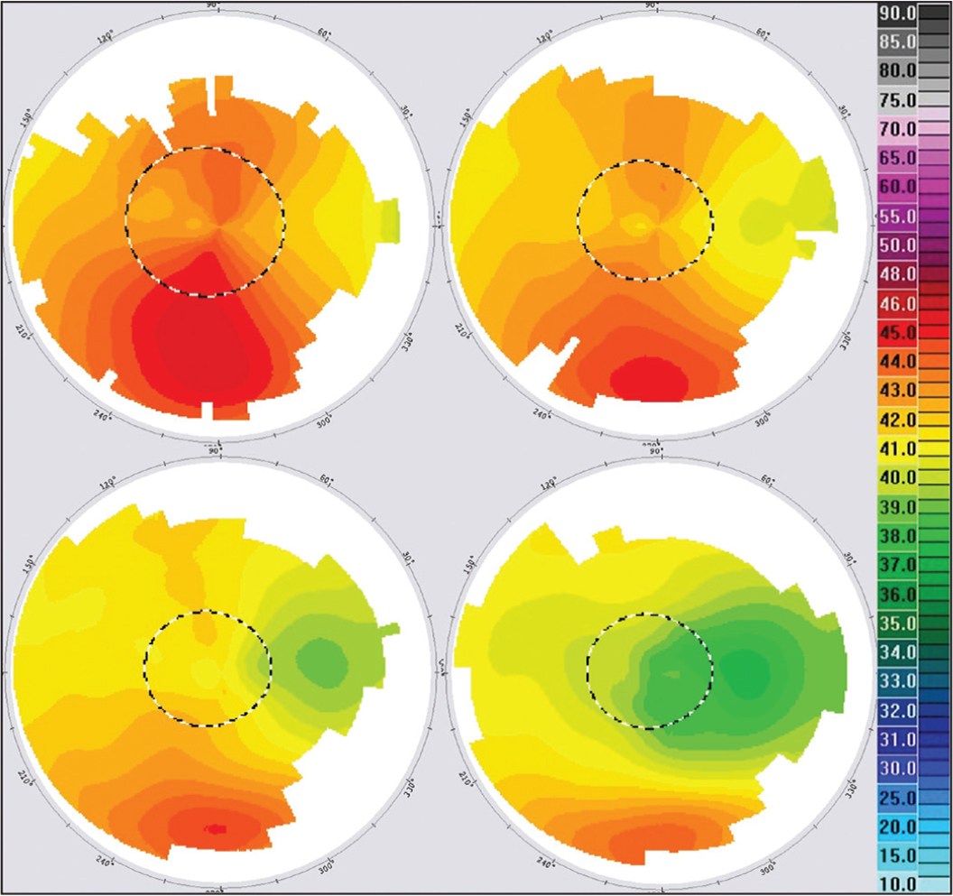 Corneal topographies 1, 4, 7, and 10 years after corneal cross-linking (case 1).