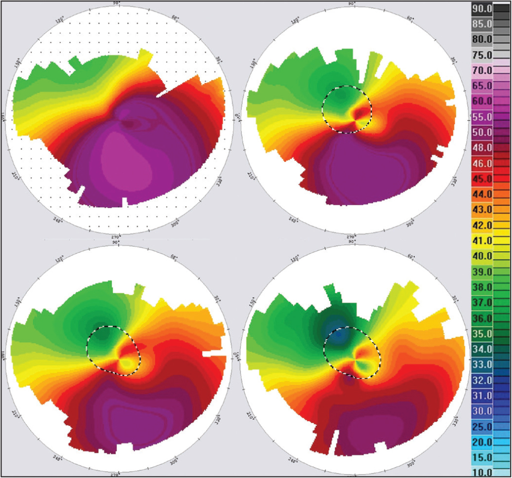 Corneal topographies 1, 4, 7, and 10 years after corneal cross-linking (case 2).