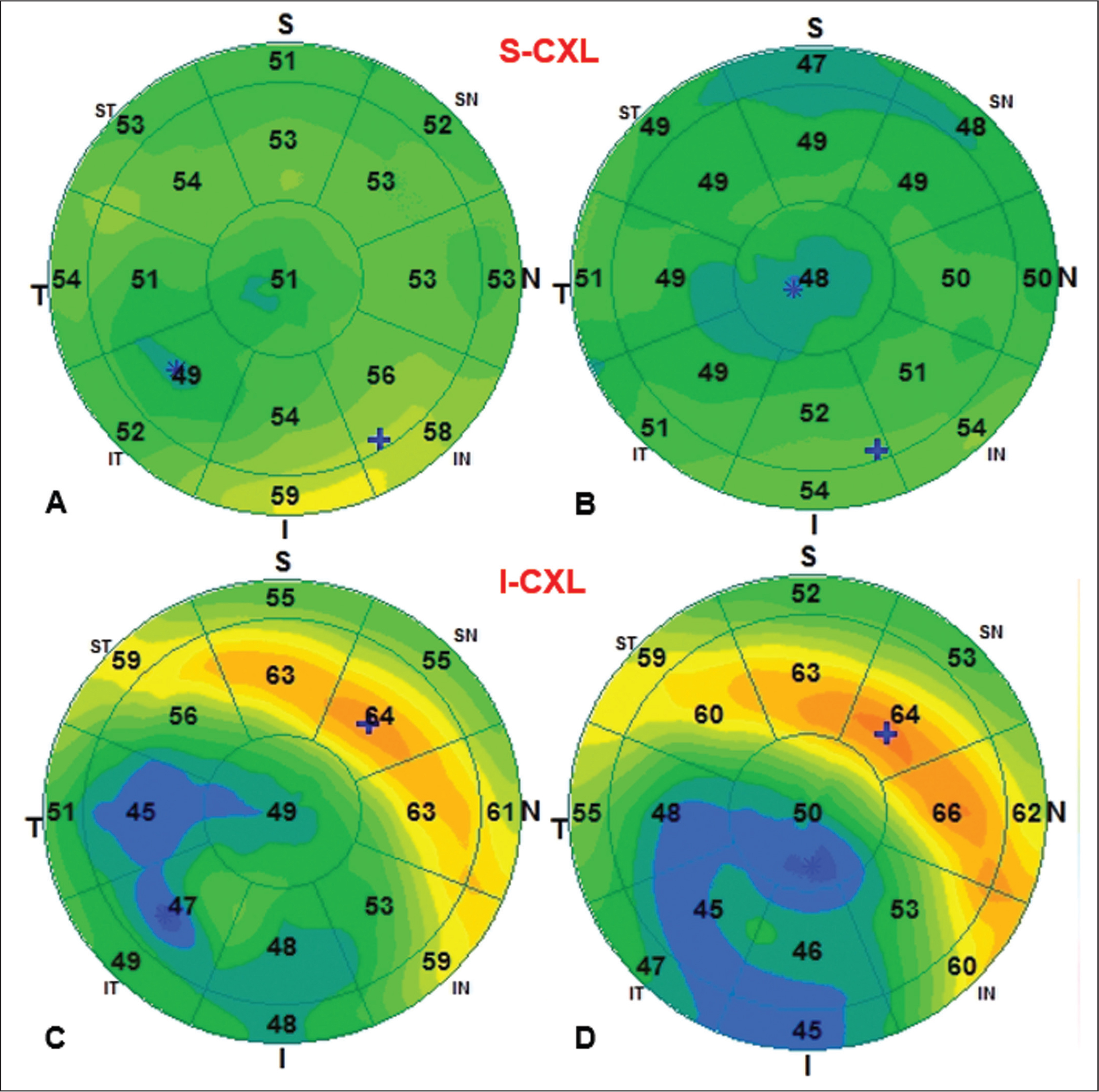 Representative result of epithelial thickness mapping by spectral-domain optical coherence tomography (SD-OCT) for one eye before surgery and 6 months after (A–B) standard corneal cross-linking (S-CXL) or (C–D) iontophoresis-assisted CXL (I-CXL).