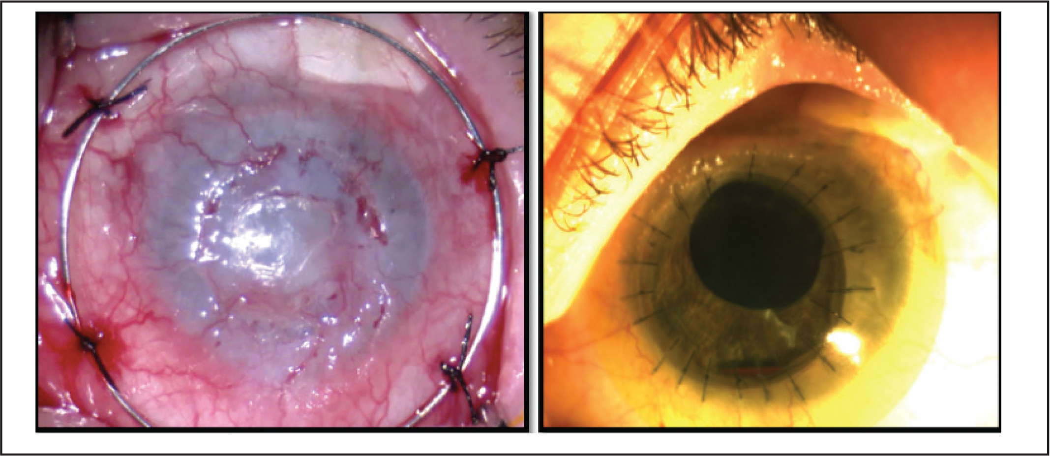 A 79-year-old woman with a history of end-stage glaucoma in the right eye and glaucoma that was treated surgically had cataract extraction surgery followed by a penetrating keratoplasty due to bullous keratopathy in the left eye. (A) She presented with a corneal abscess in the left eye. Her visual acuity on presentation was light perception. She was treated with vancomycin (50 mg/mL) and ceftazidime (33 mg/mL) drops hourly, oral acyclovir 400 mg five times daily, natamycin 5% drops every second hour, and doxycycline 100 mg once daily. Despite treatment, 2 weeks after corneal melting was noted, she underwent corneal cross-linking and the melting area was covered with a glue patch. Four months later, her visual acuity was counting fingers and the glue patch was in place. Penetrating keratoplasty was performed 2 months later.