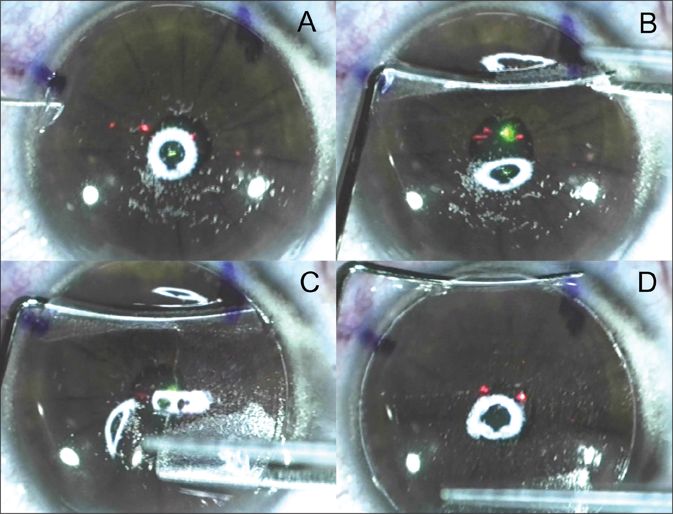 Series of images describing the inferior pseudo-hinge fulcrum technique for lifting a LASIK flap in an eye that has previously had small incision lenticule extraction (SMILE). The aim of the technique is to avoid placing the tip of either instrument in the vicinity of either of the small incisions because this may tear the flap. (A) The flap lifter is used to open the flap side cut in the inferior third of the flap. (B) The flap lifter is pushed across the flap and used to open the flap side cut on the opposite side to create an access point for the McPherson's forceps. This motion is made with some upward force to avoid the instrument tip breaking through to the original SMILE interface. (C) The McPherson's forceps is inserted to the mid-point of the flap and swept superiorly, thereby separating the region of the small incision with the arm of the instrument and not the tip. The flap lifter is held in place using the inferior unseparated portion of the flap to provide counter-traction for the McPherson's forceps. A second sweep is made to separate the other half of the flap. (D) The McPherson's forceps is then placed against the superior hinge to provide counter-traction for the flap lifter to be used to separate the inferior portion of the flap in the usual manner. Reprinted with permission from Reinstein DZ, Archer TJ, Carp GI. The Surgeon's Guide to SMILE: Small Incision Lenticule Extraction. Thorofare, NJ: SLACK Incorporated; 2018.